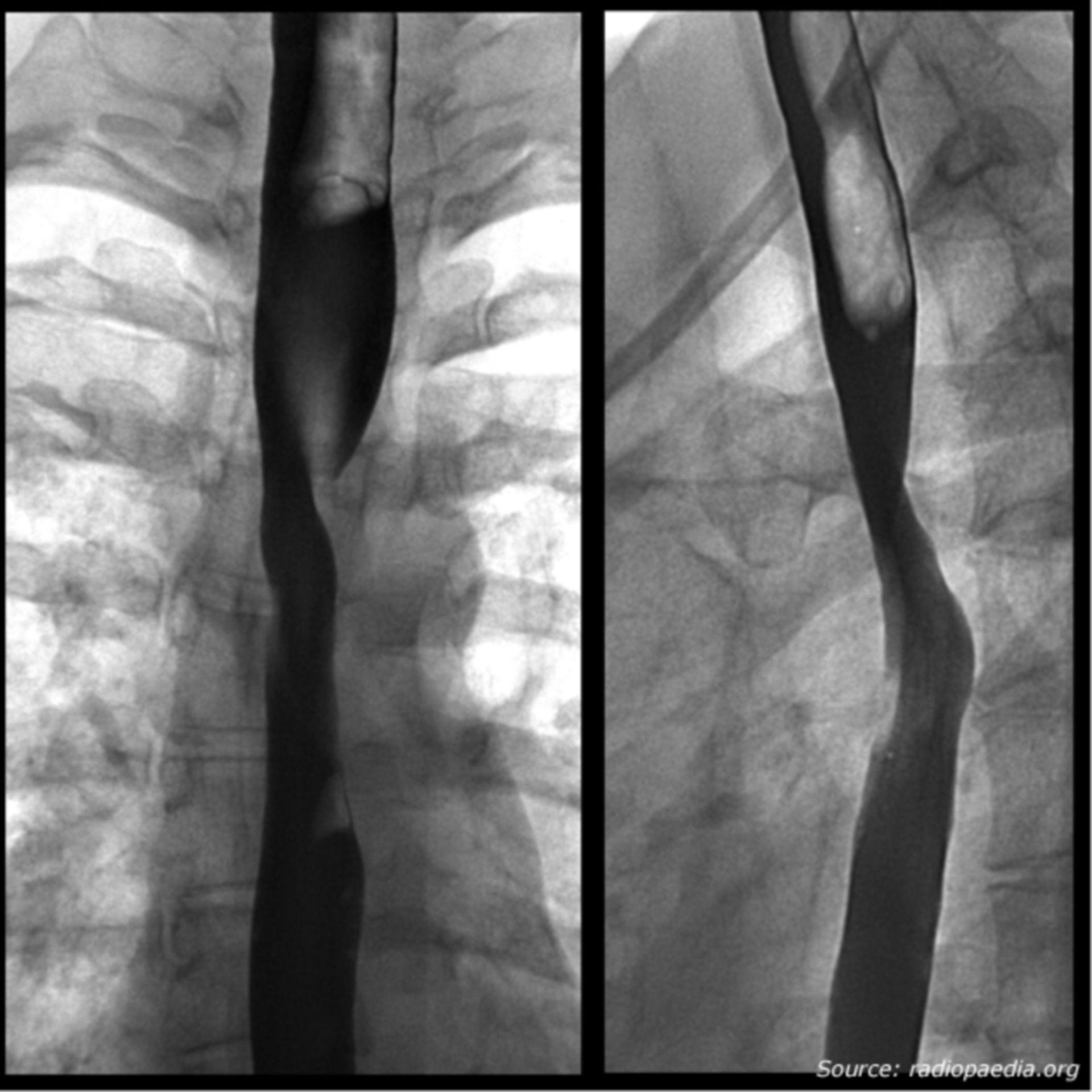 Barium-Breischluck-Untersuchung (Bildrätsel)