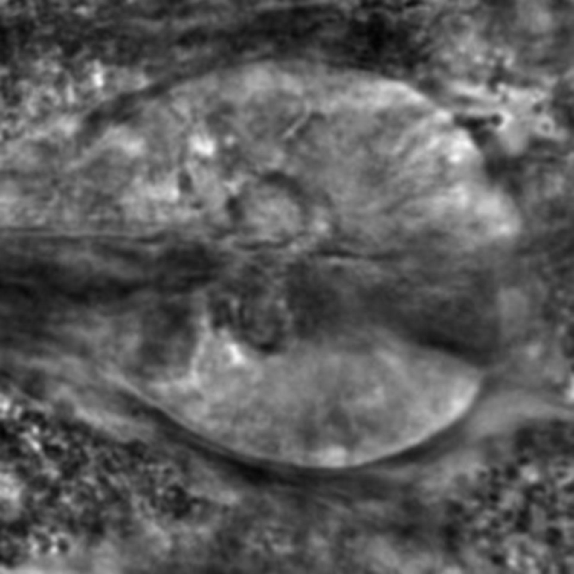 Caenorhabditis elegans - CIL:2306