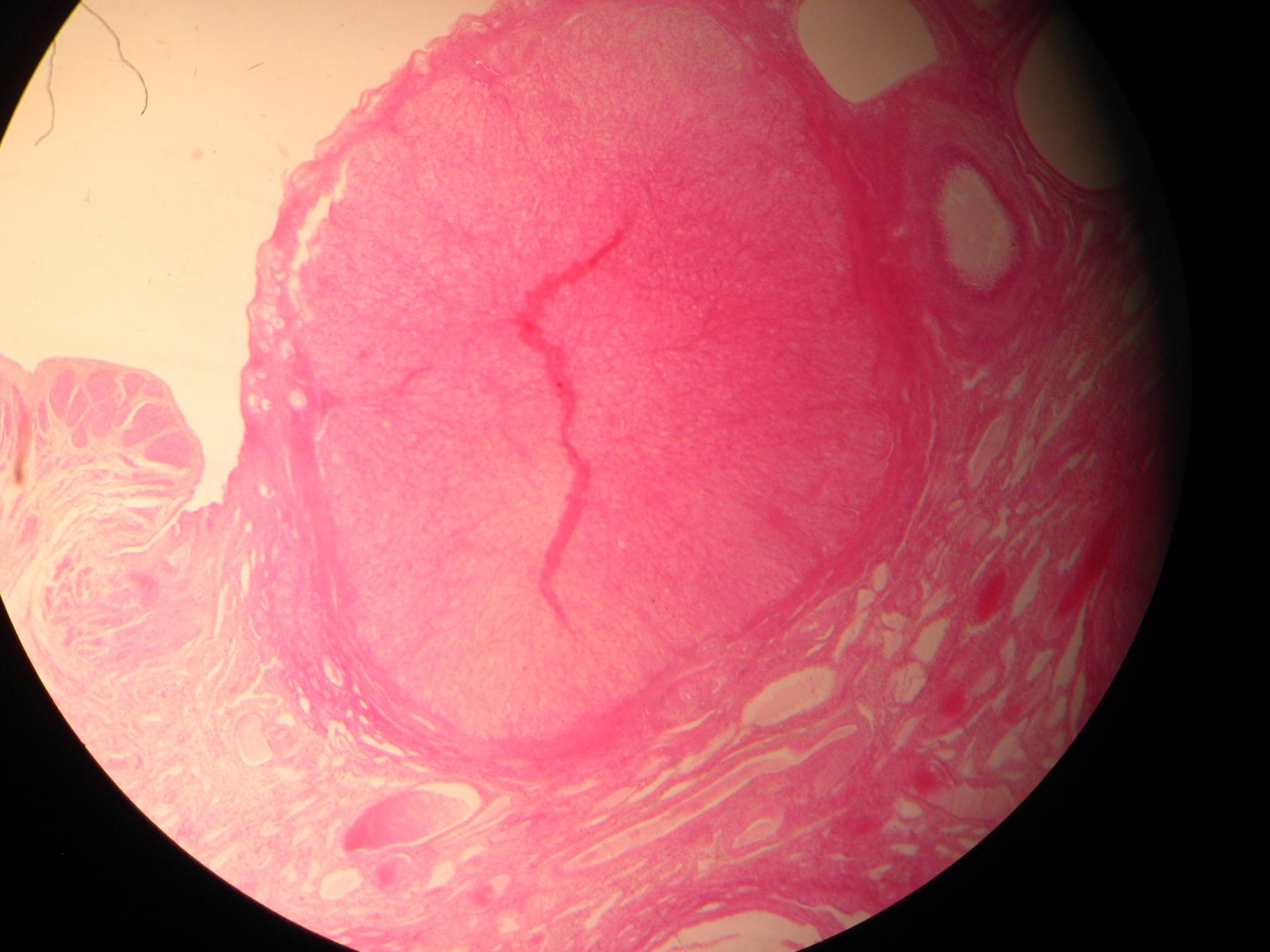 Veterinary Medicine: Ovary of a Cat (1)- Corpus luteum