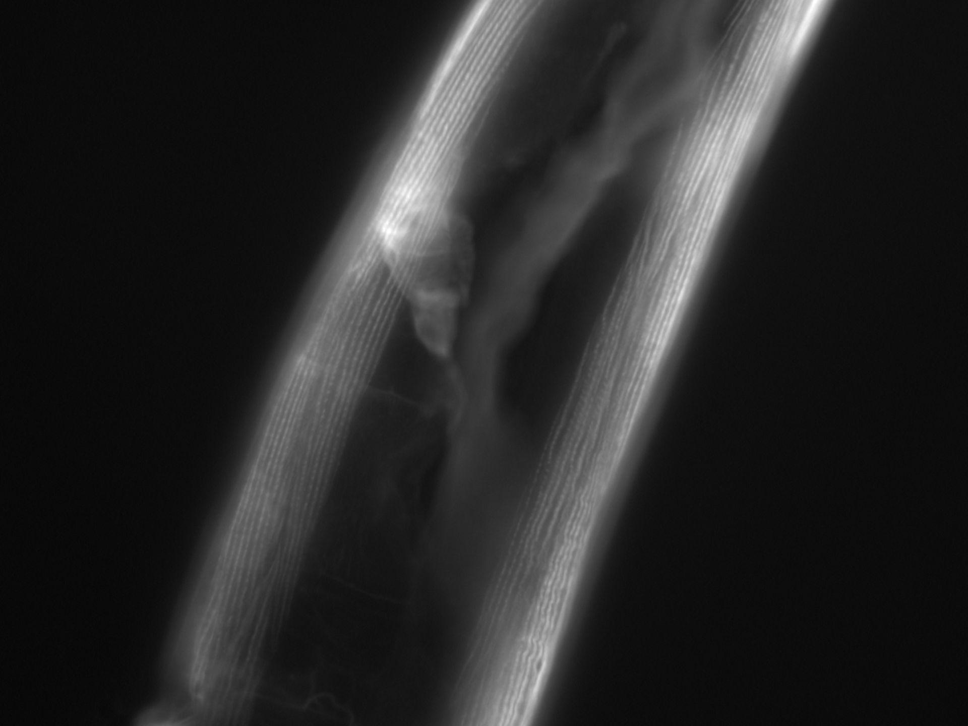 Caenorhabditis elegans (filamento di actina) - CIL:1064