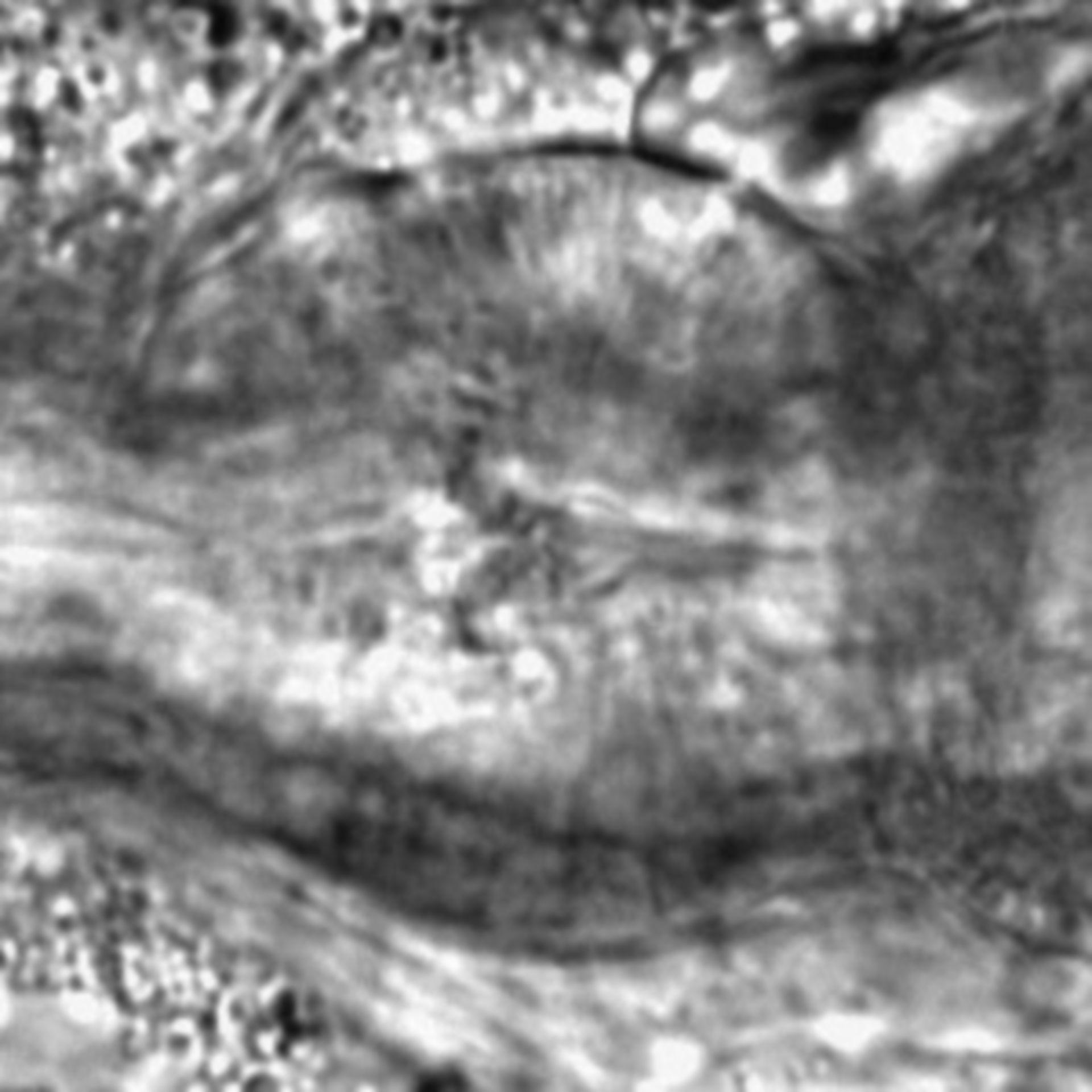 Caenorhabditis elegans - CIL:1913