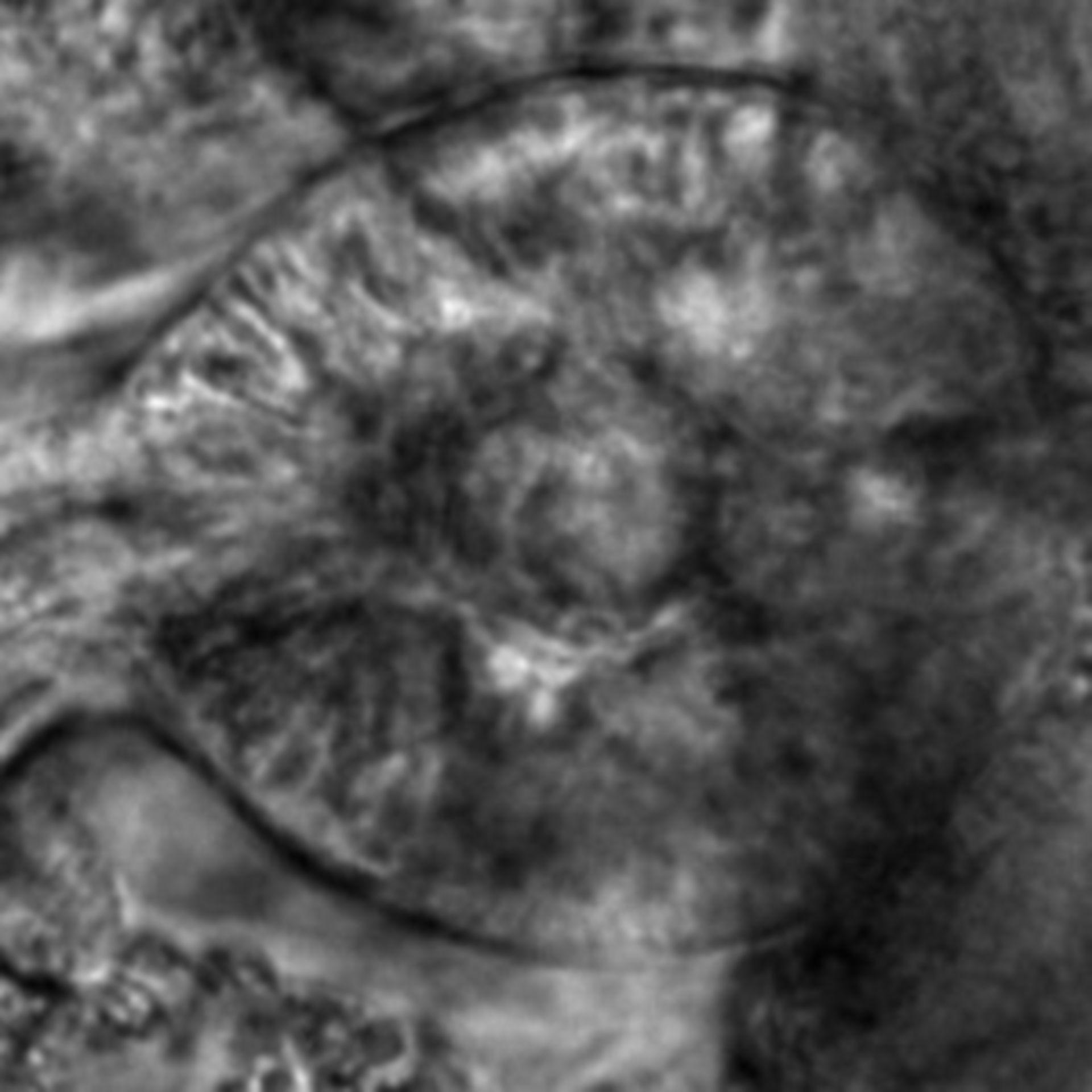 Caenorhabditis elegans - CIL:2637