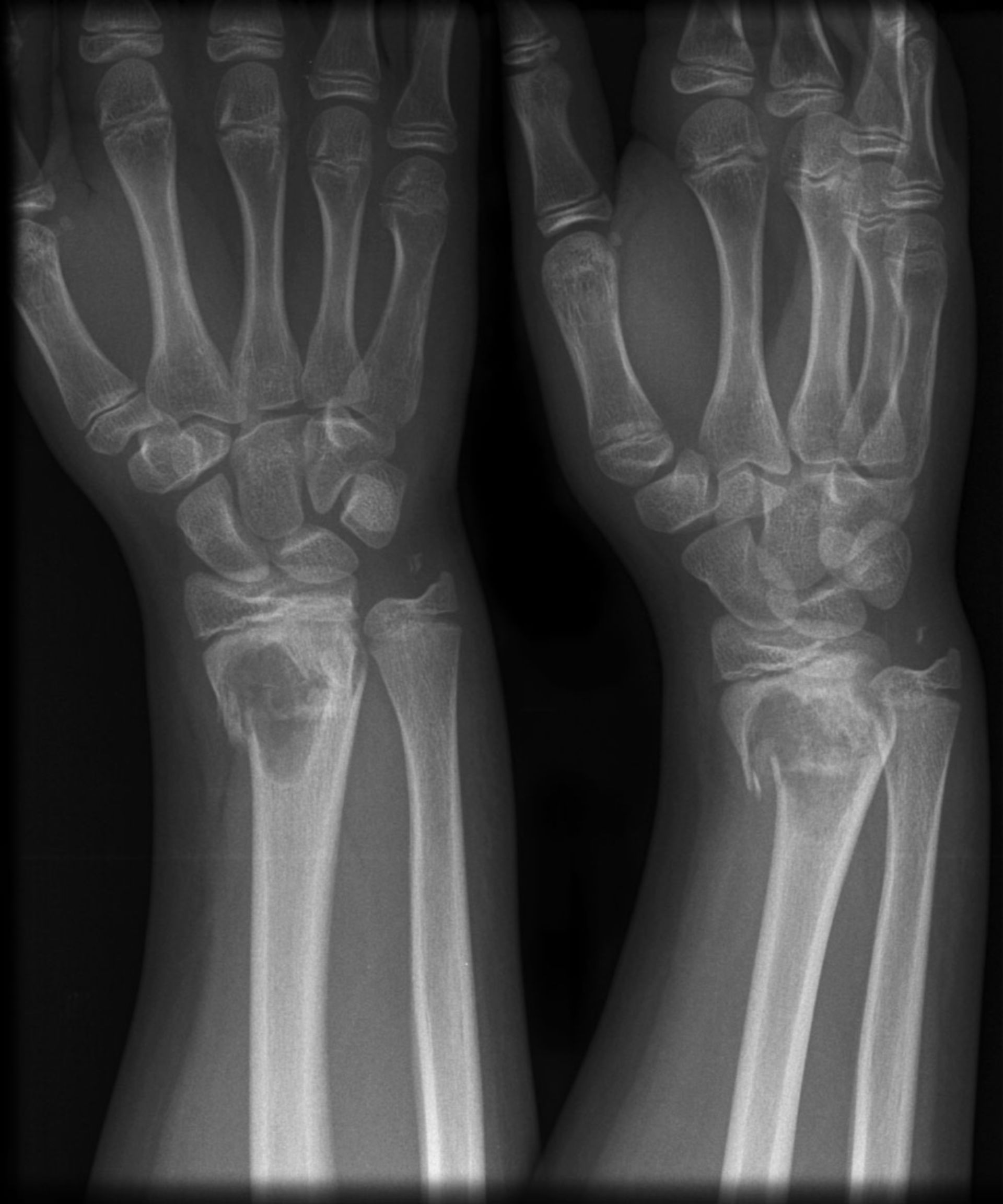 Metaphyseal pathological fracture