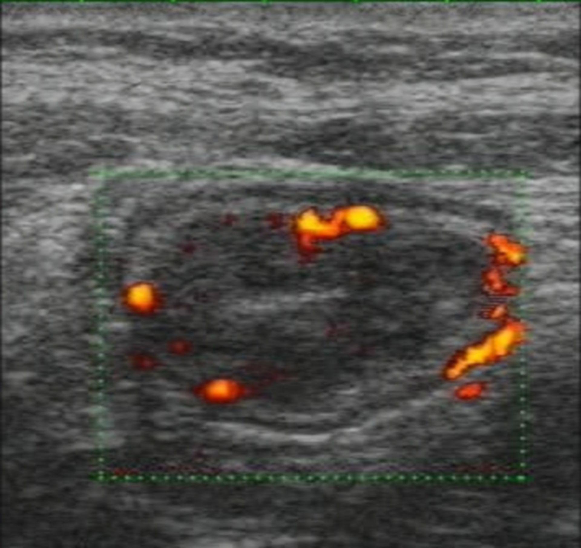 La malattia di Crohn - Doppler