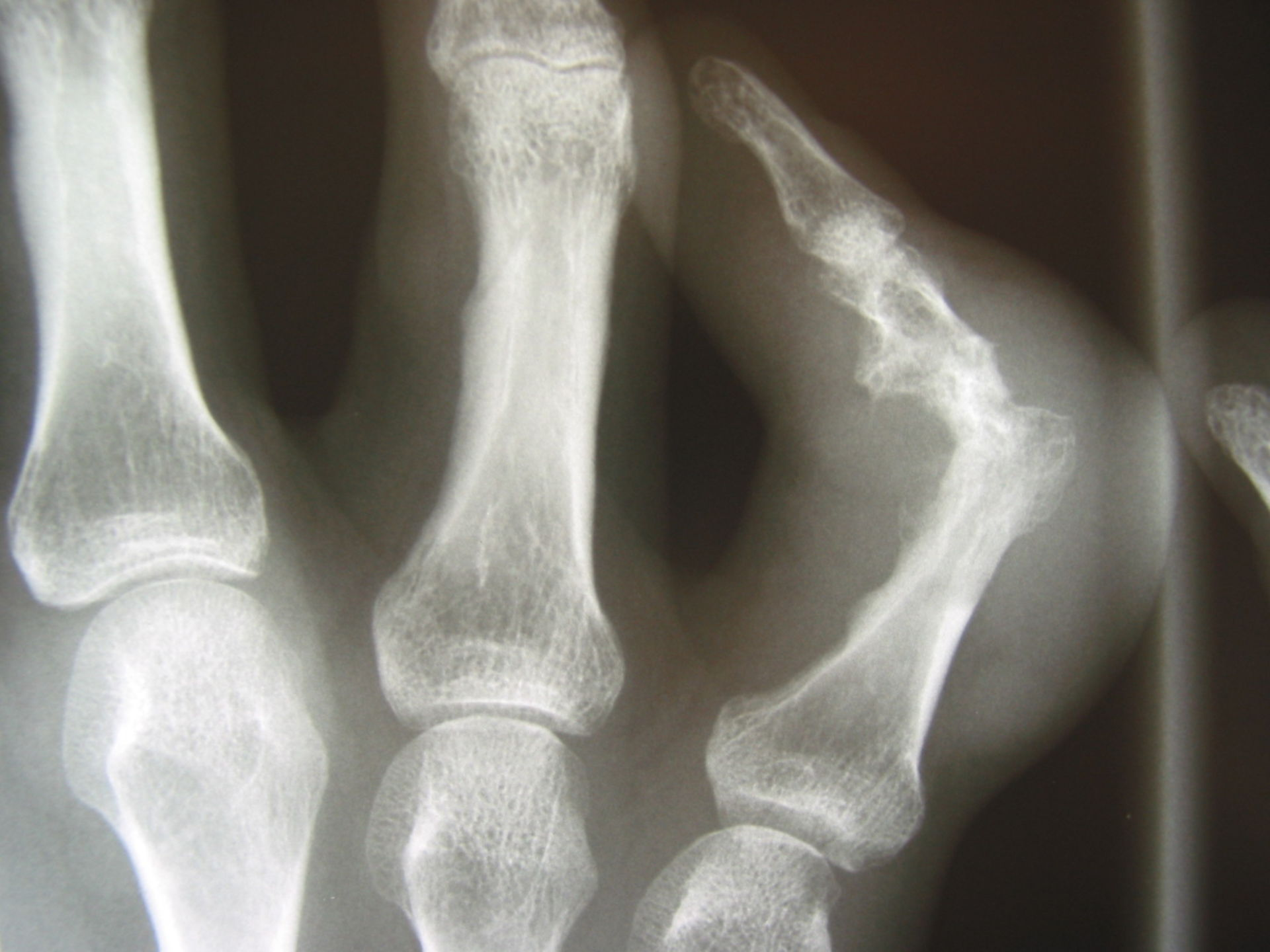 X-ray of fingers gouty arthritis