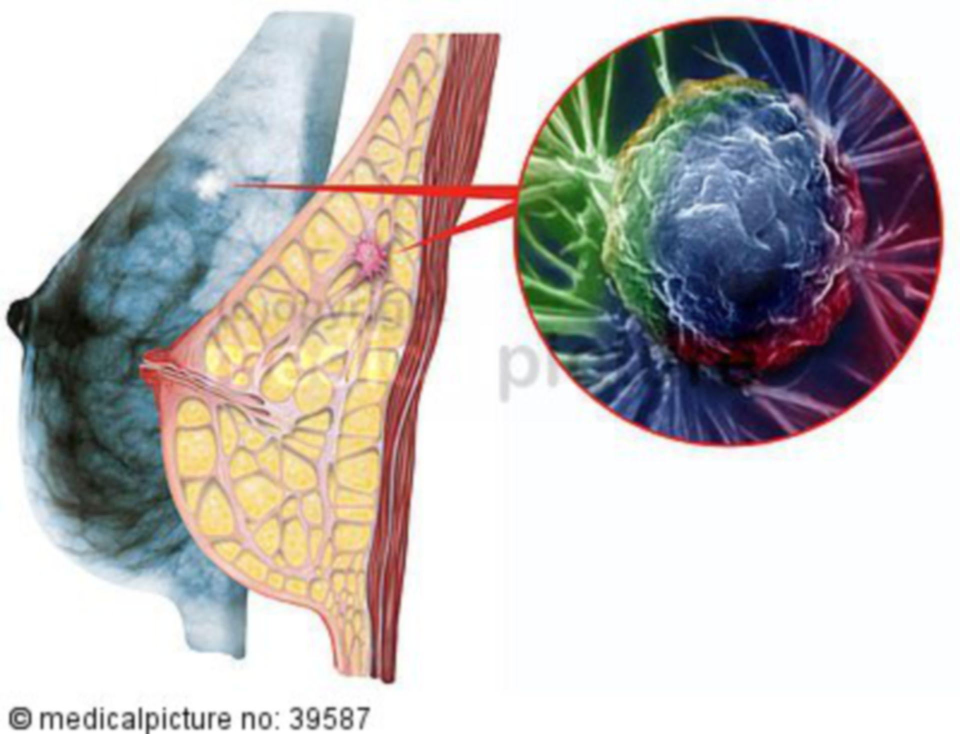 Breast cancer, mammary carcinoma