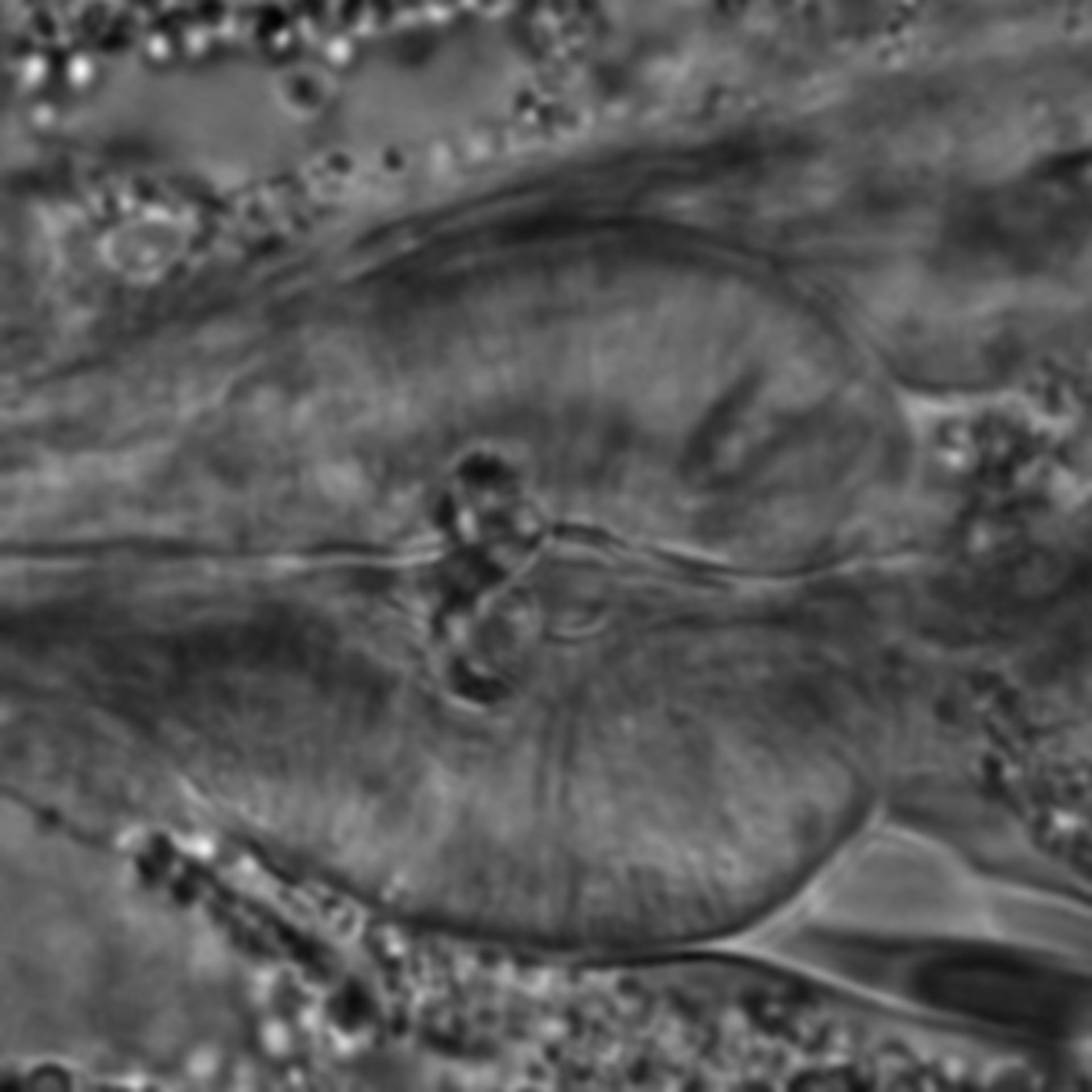 Caenorhabditis elegans - CIL:1733