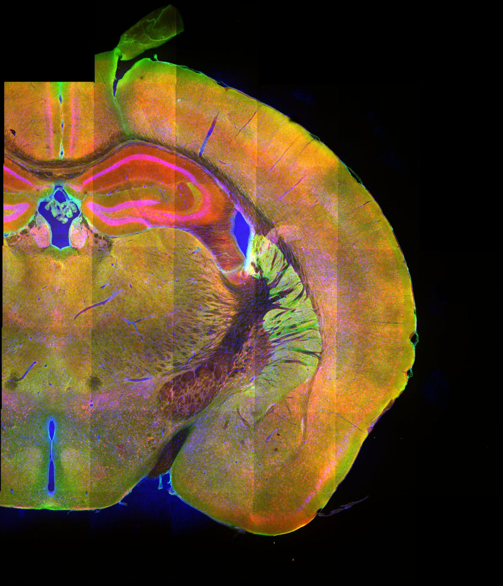 Mosaikbild eines koronalen Mausgewebes