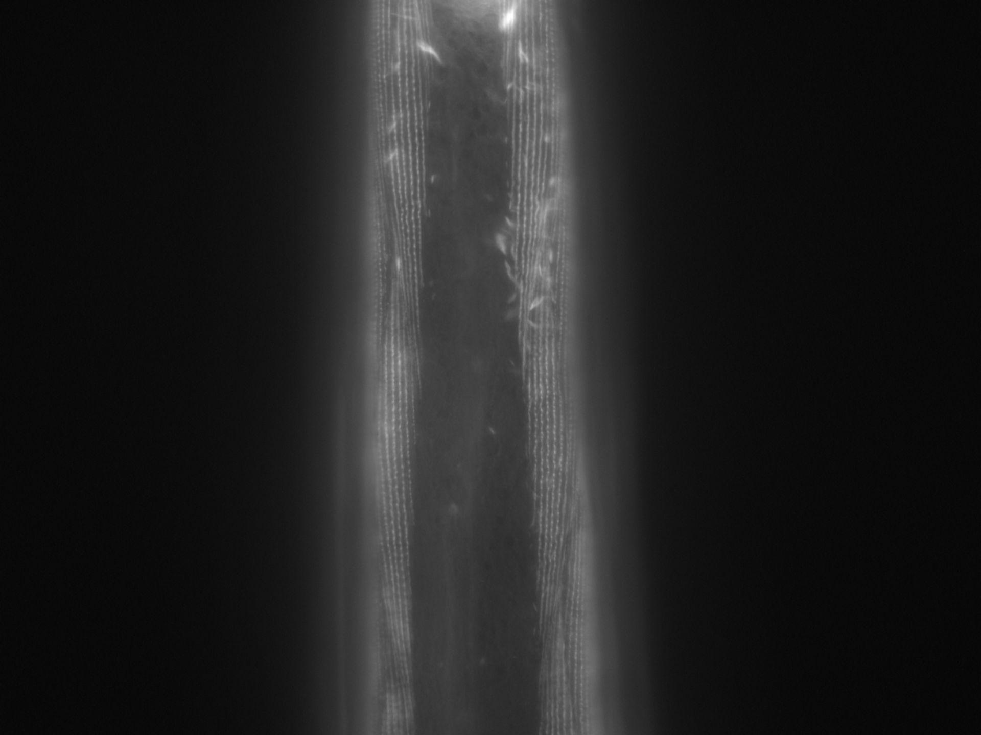Caenorhabditis elegans (Actin filament) - CIL:1005