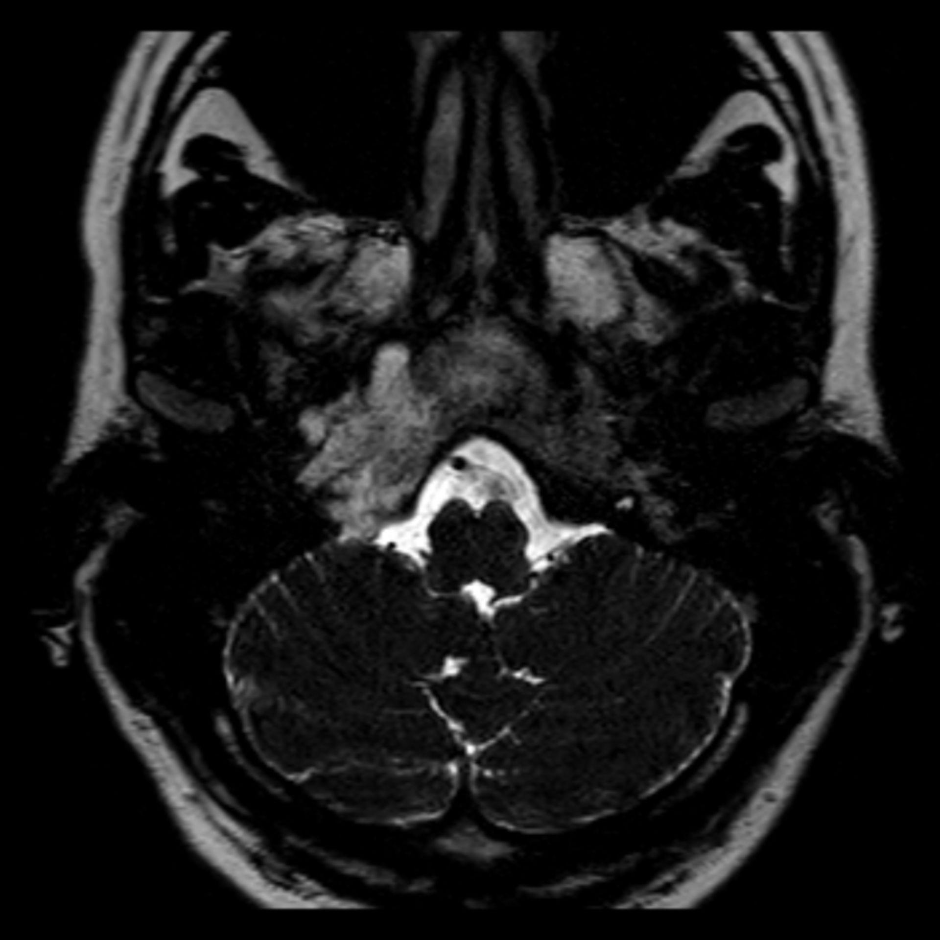 t2_3d_drive_tra100001: MRT des Kopfes in transversaler Ebene