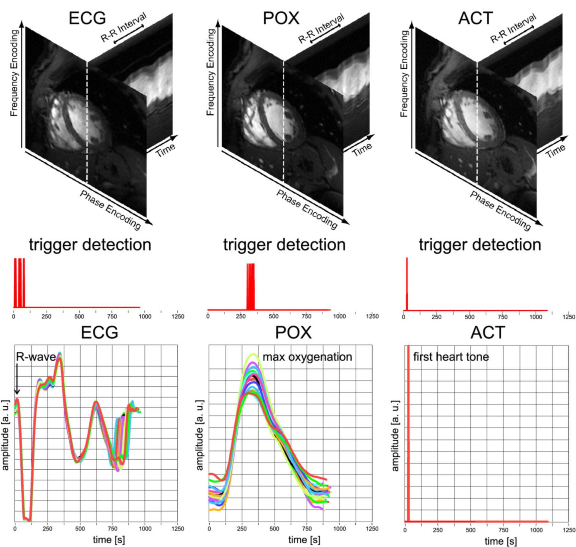 Cardiovacular MRT: Example of correct ECG trigger detection