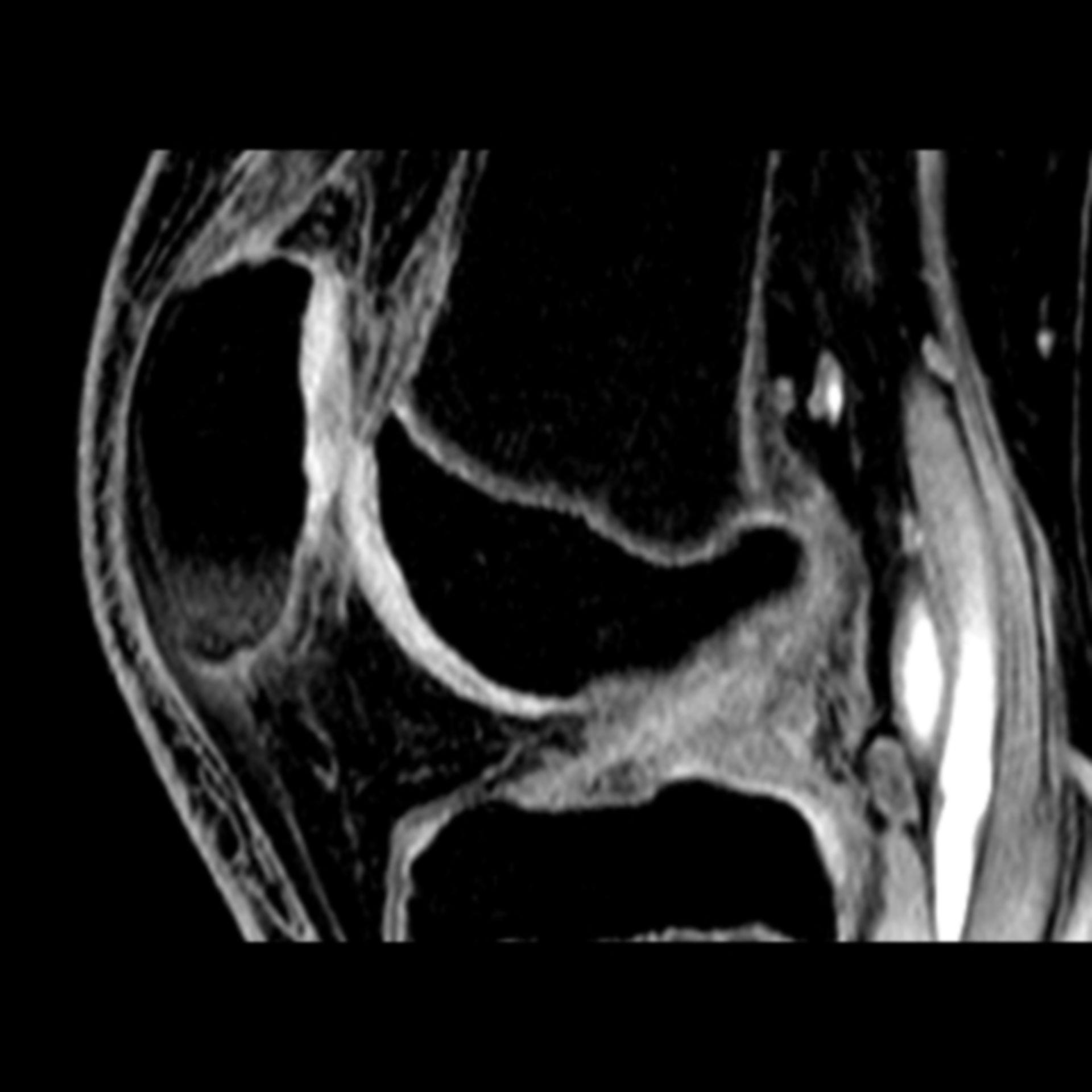 IRM de la rodilla (3)