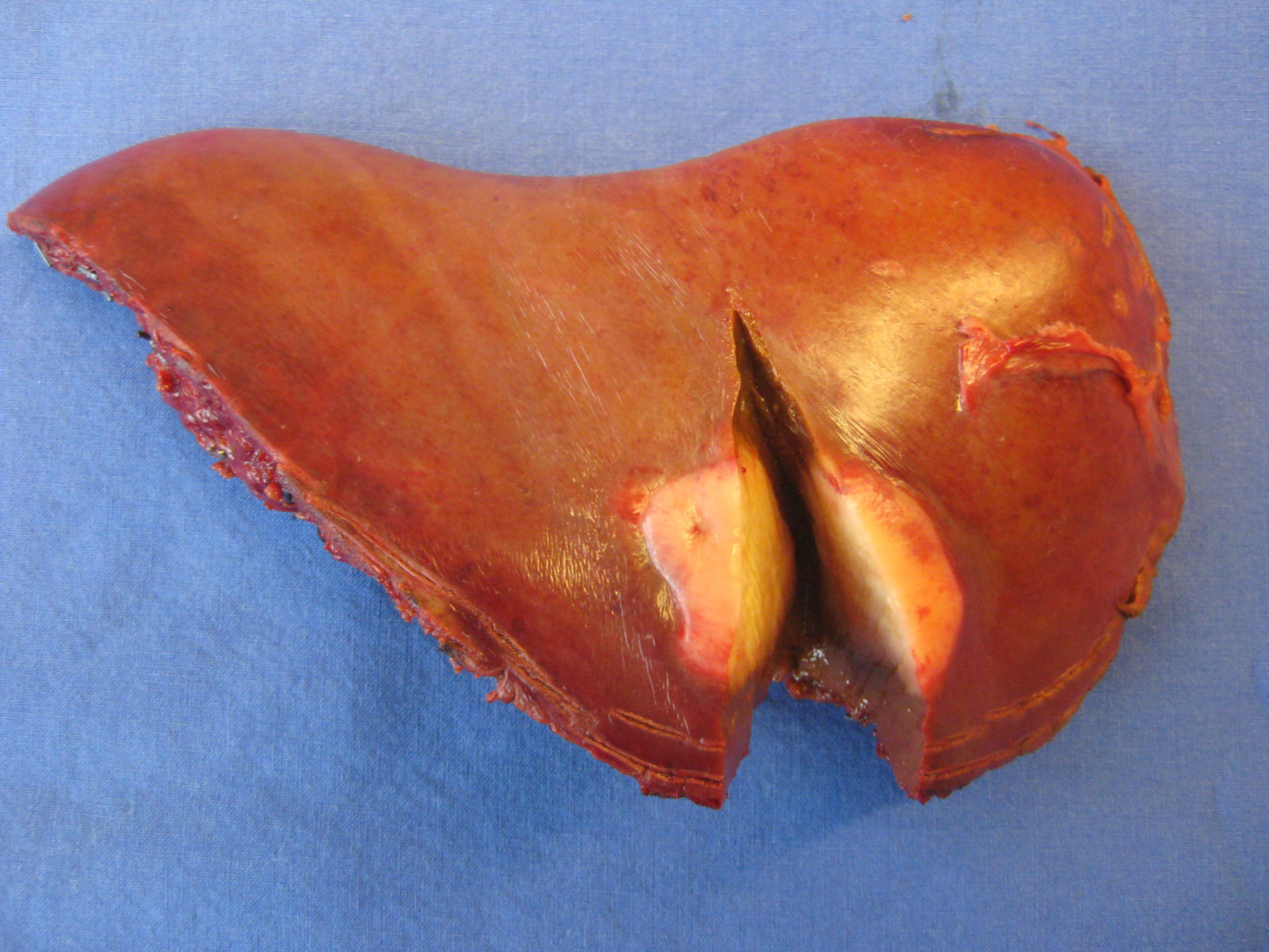 Hemihepatectomy in a case of liver tumor