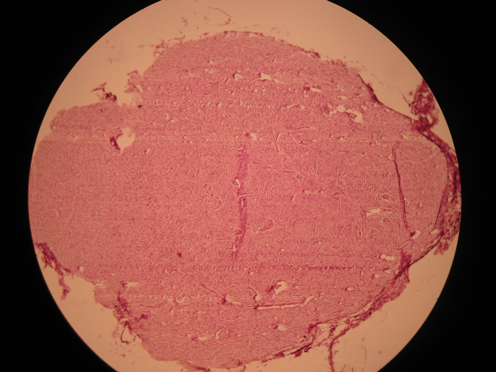 Veterinary medicine: Pineal gland of a calf