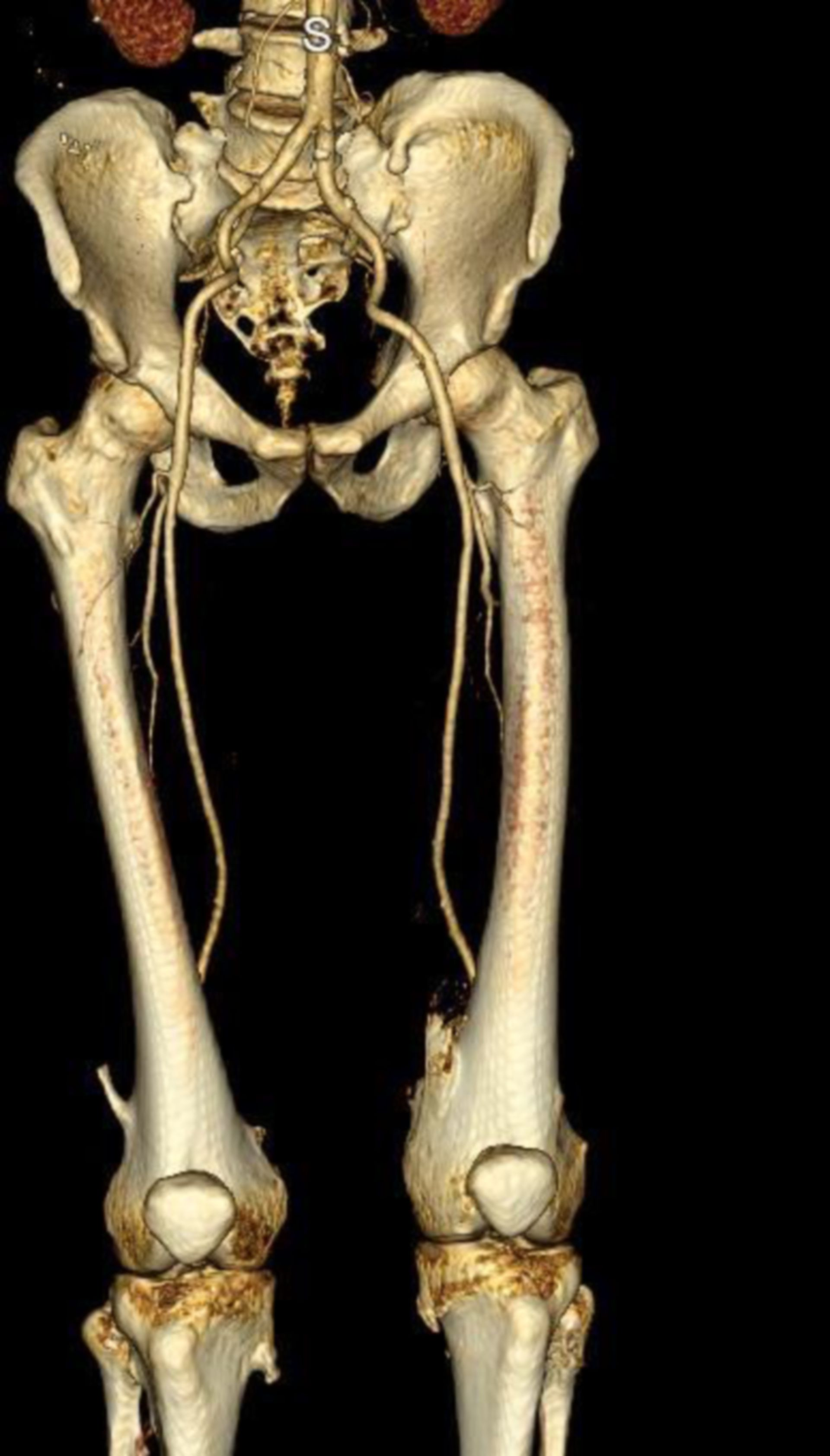 Osteoid Osteom am Knie