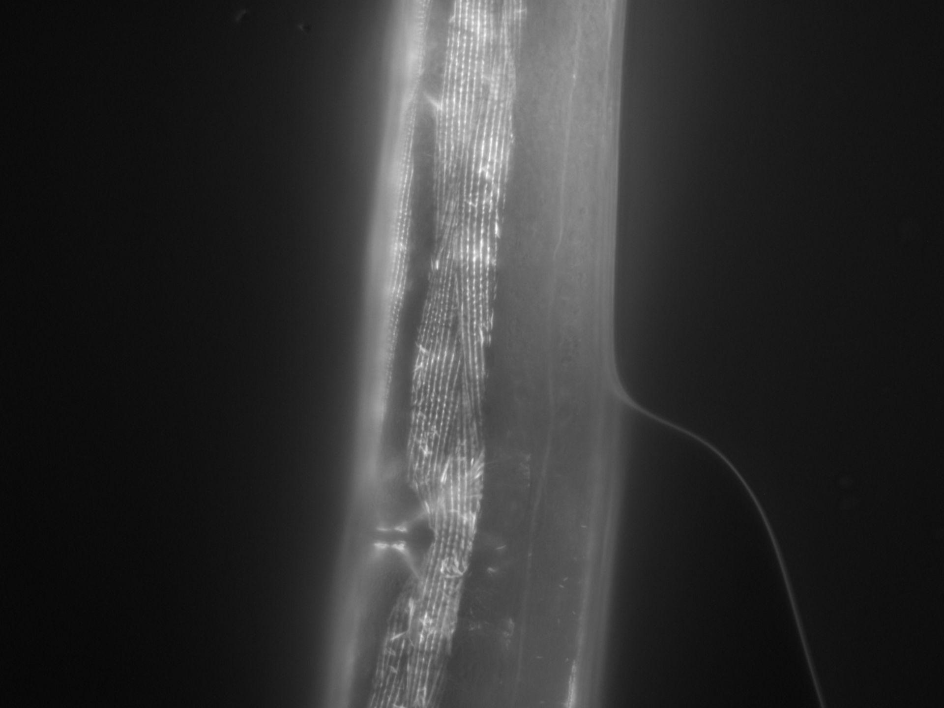 Caenorhabditis elegans (Actin filament) - CIL:1028