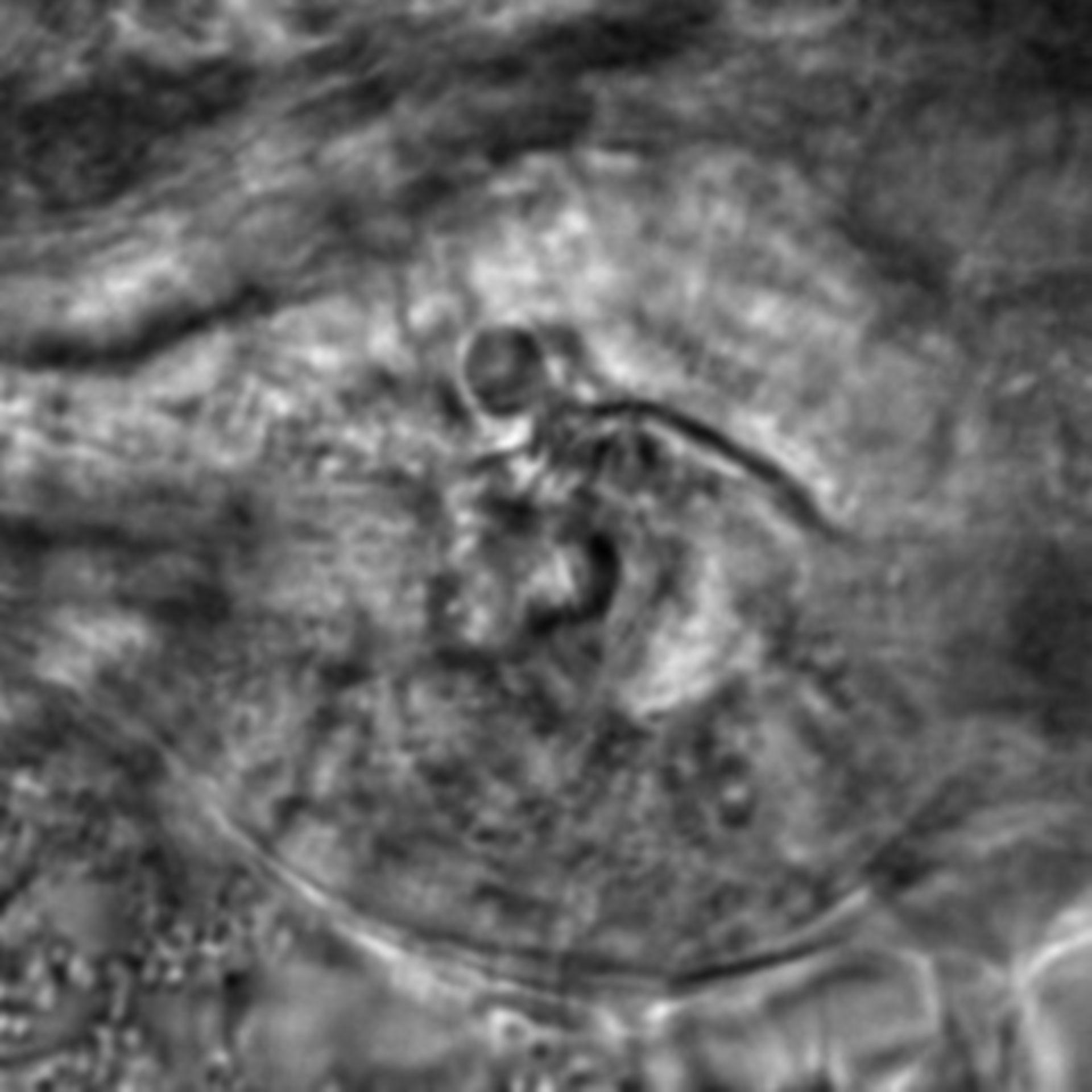 Caenorhabditis elegans - CIL:2696