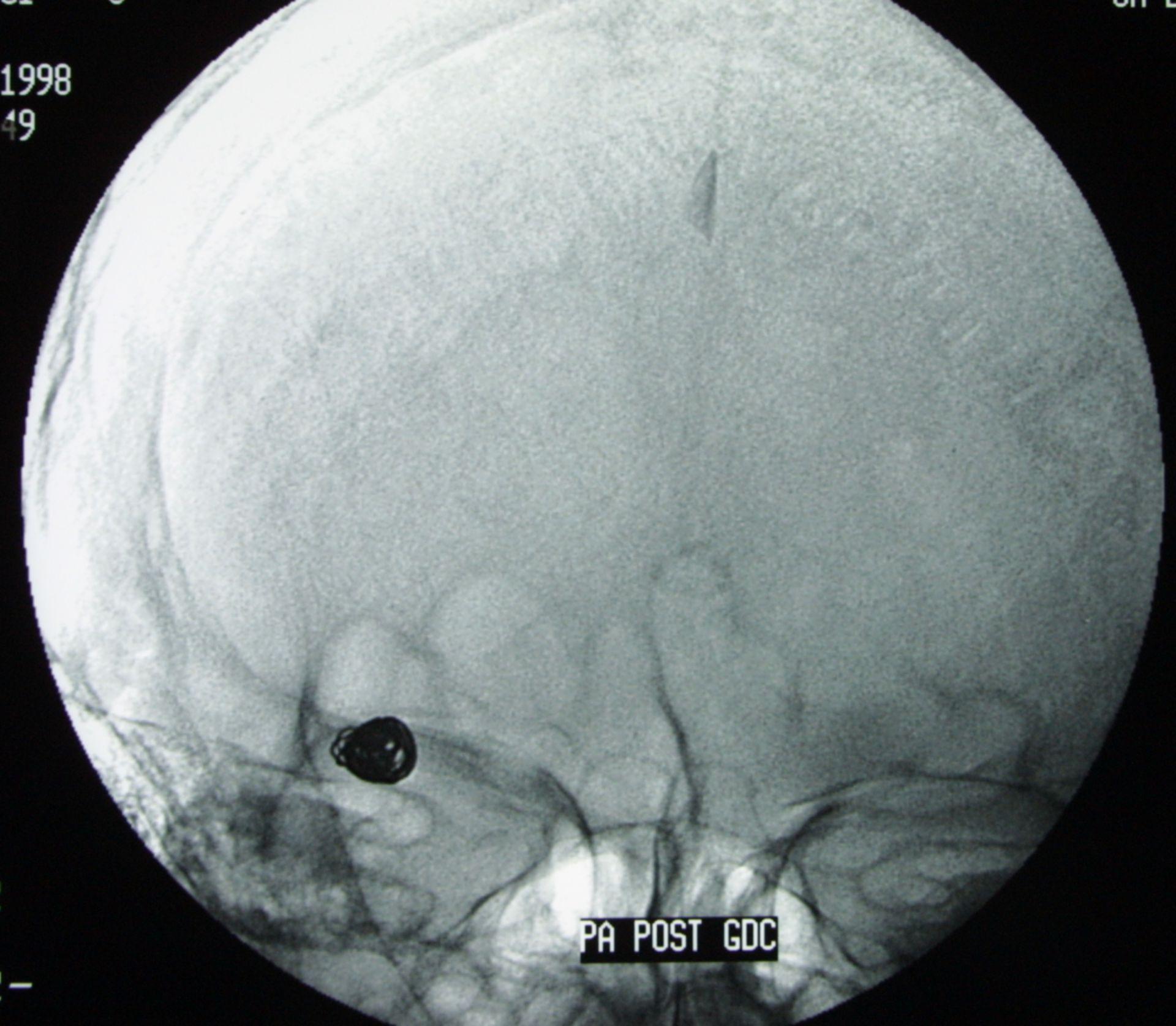 Aneurysmacoil - Röntgen seitlich