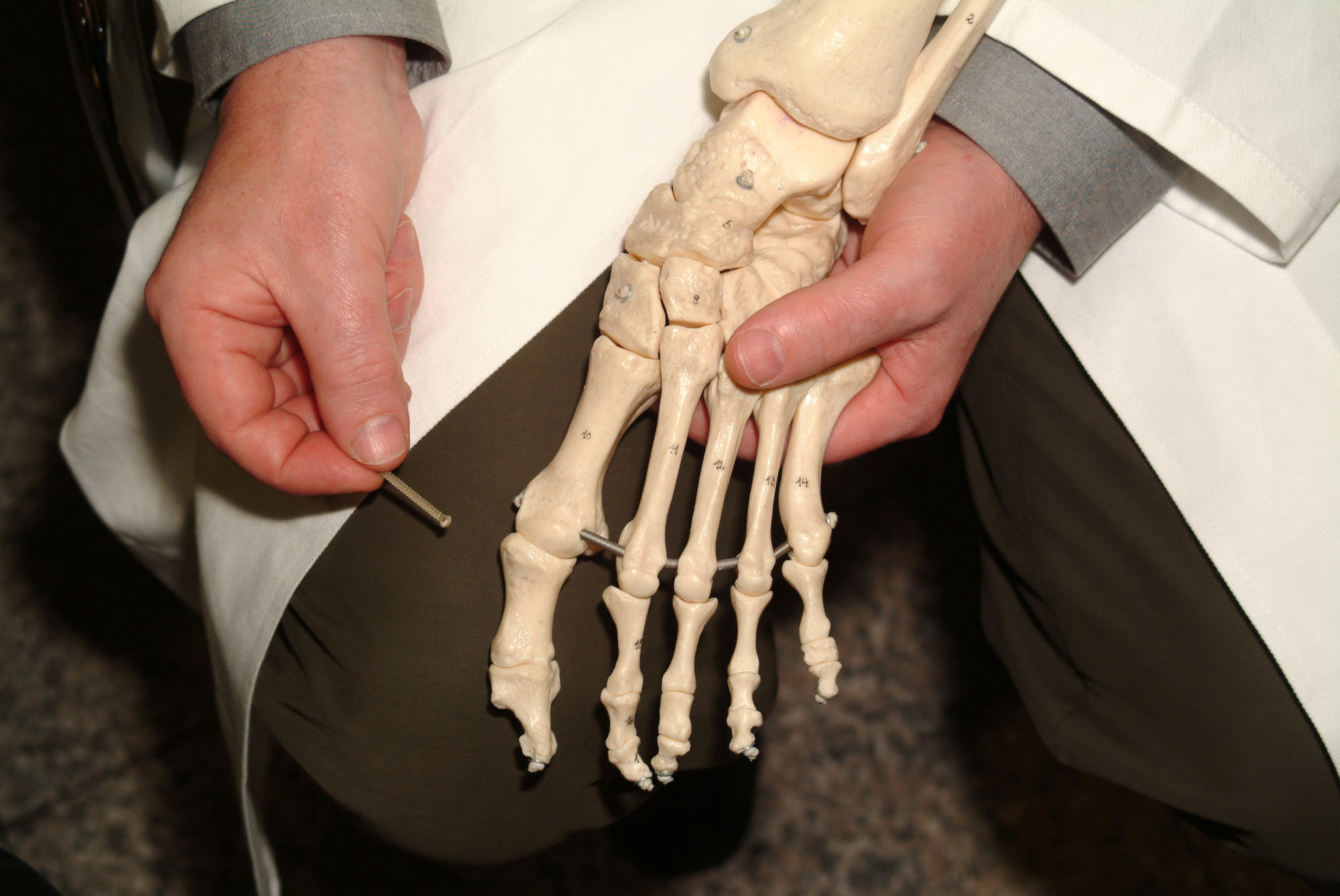 Foot skeleton with lactic acid implant