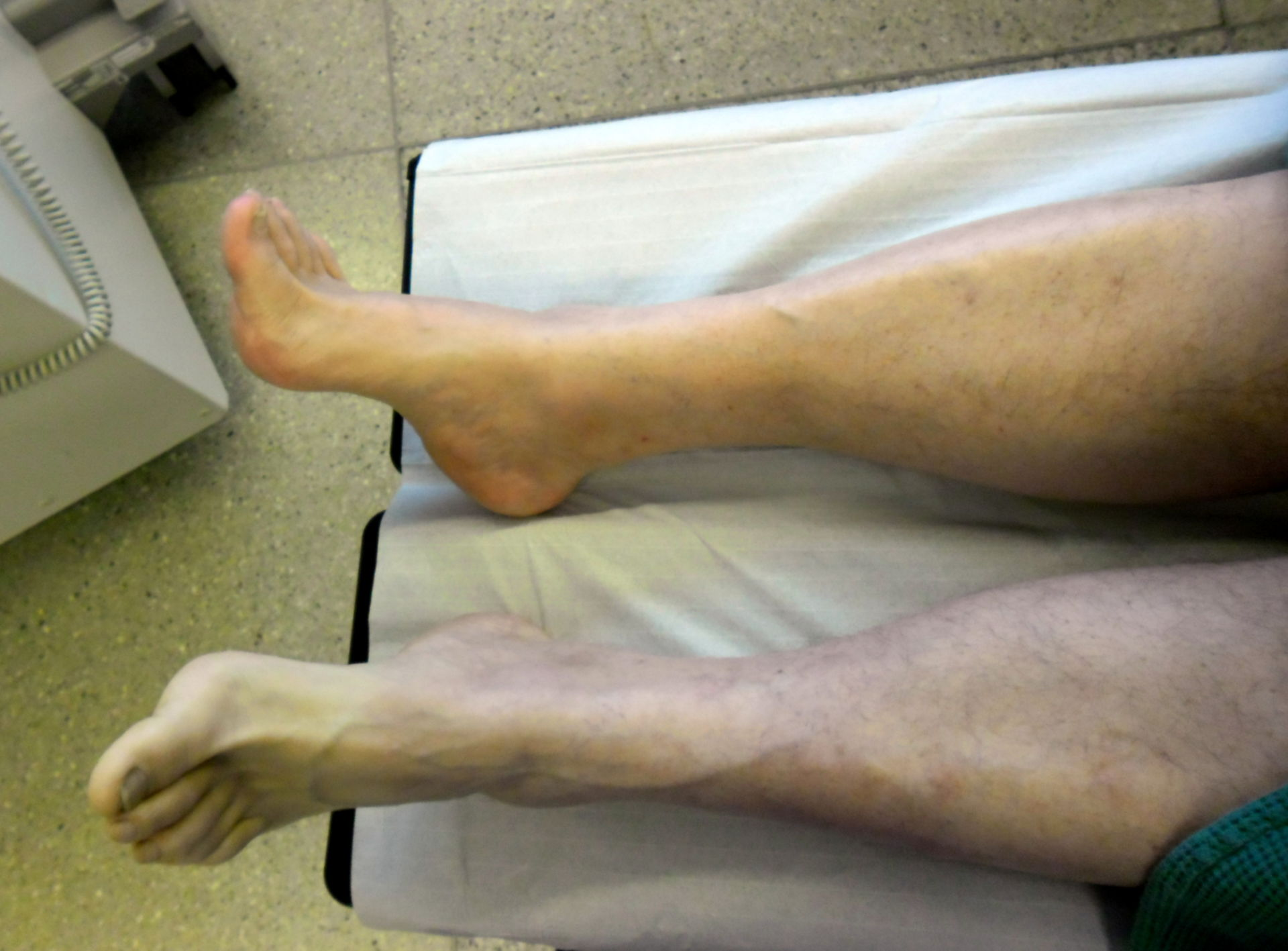 Embolia en la pierna izquierda