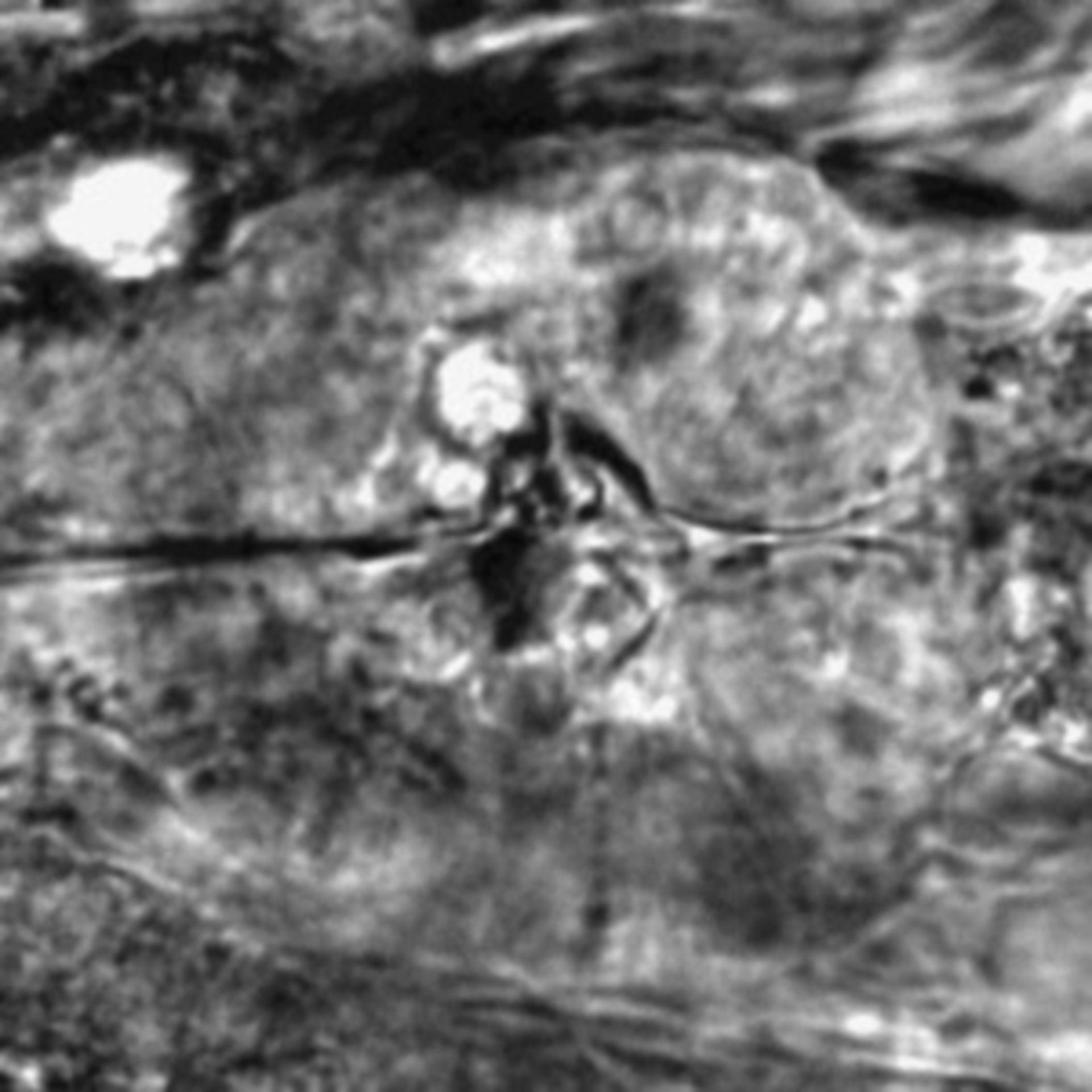 Caenorhabditis elegans - CIL:2698