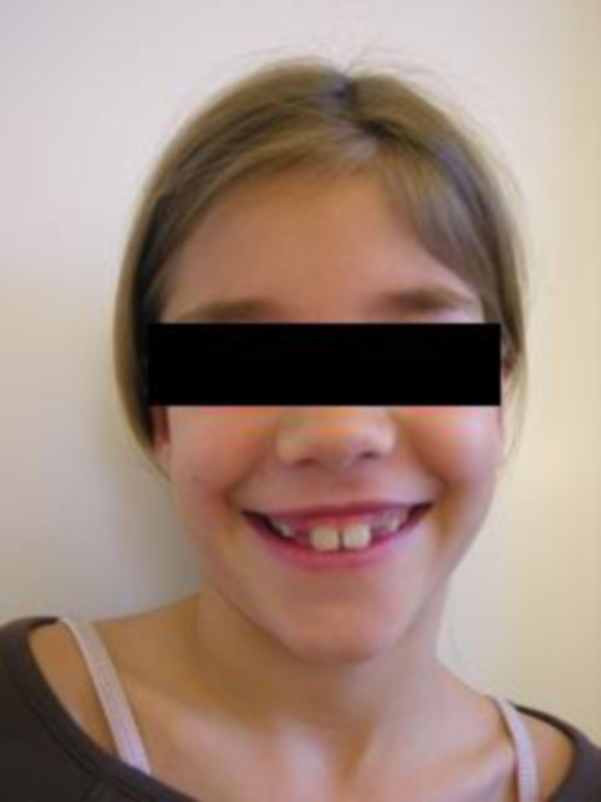 Dopo la chirurgia plastica delle orecchie