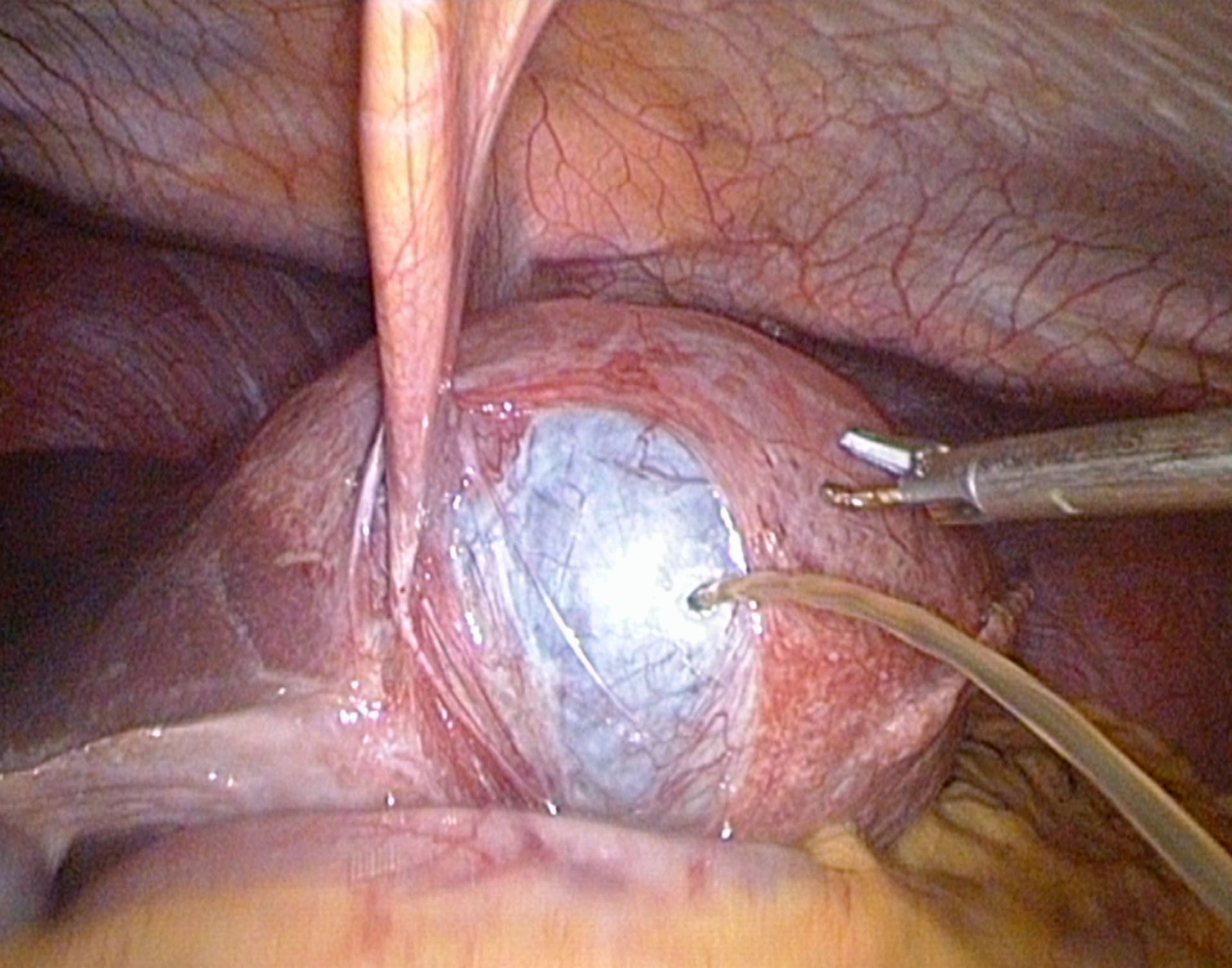 Laparoscopic liver cyst-opening and suctioning