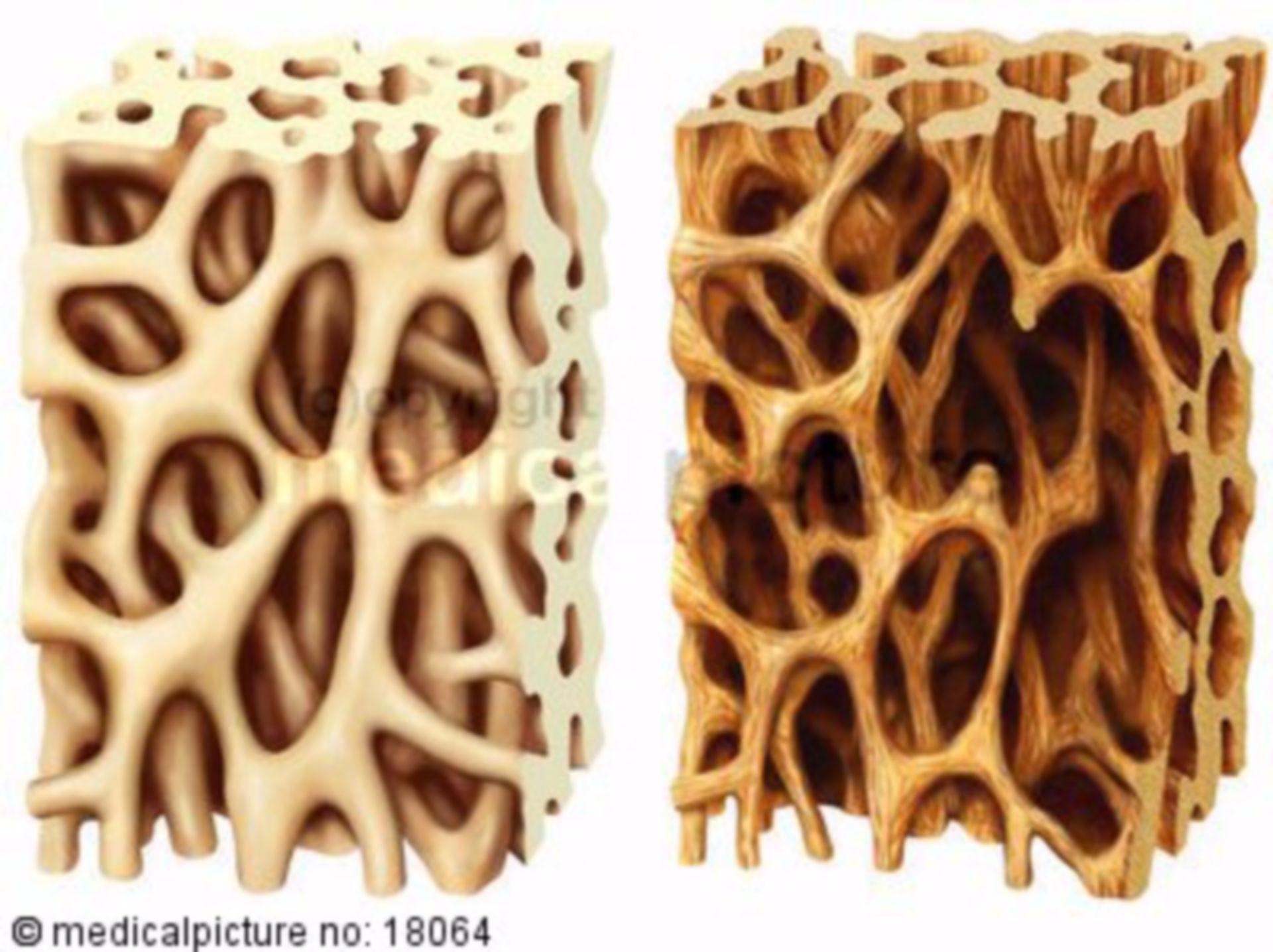 Healthy bone vs. osteoporosis