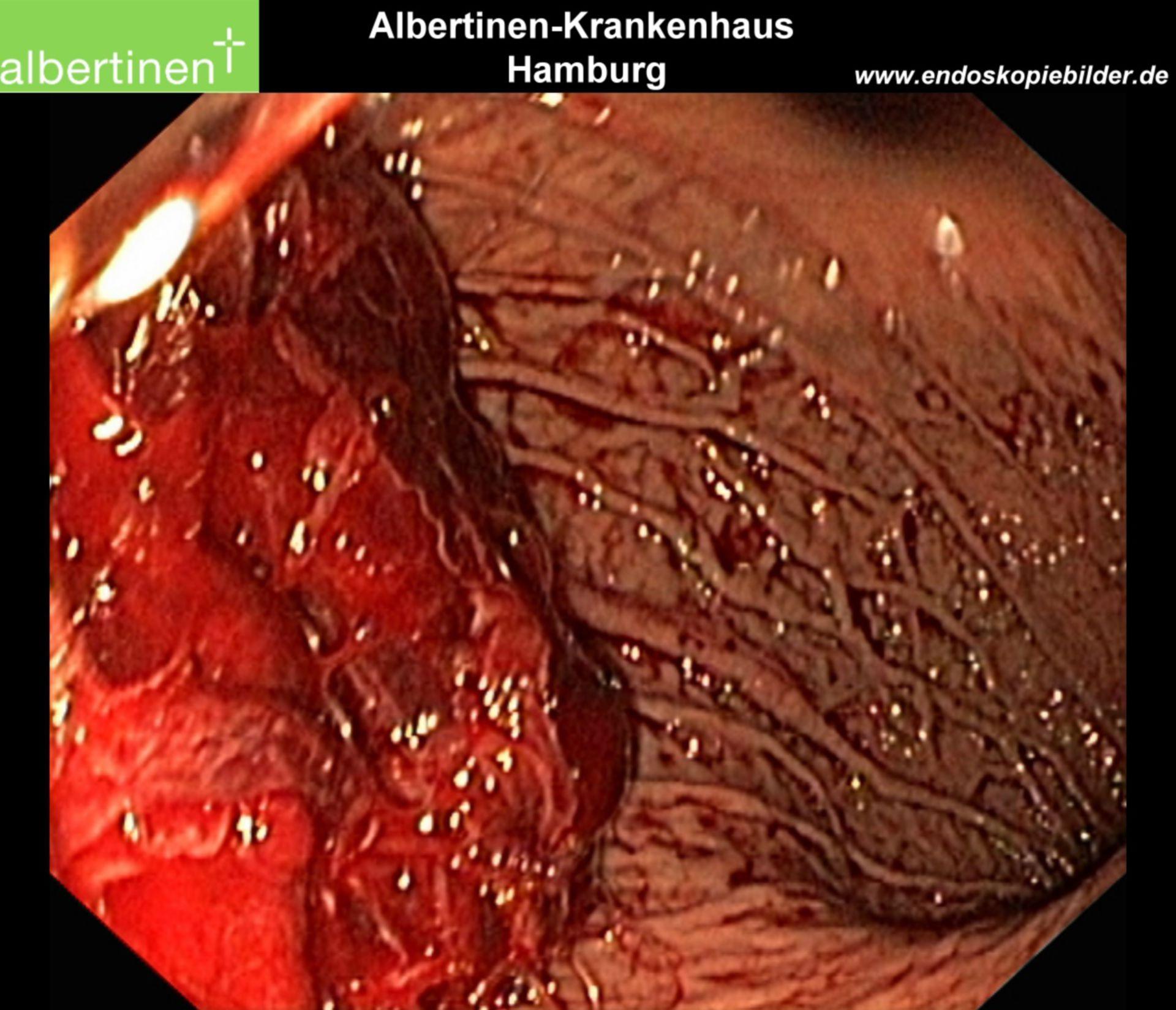 Endoscopia: Grande coagulo nello stomaco