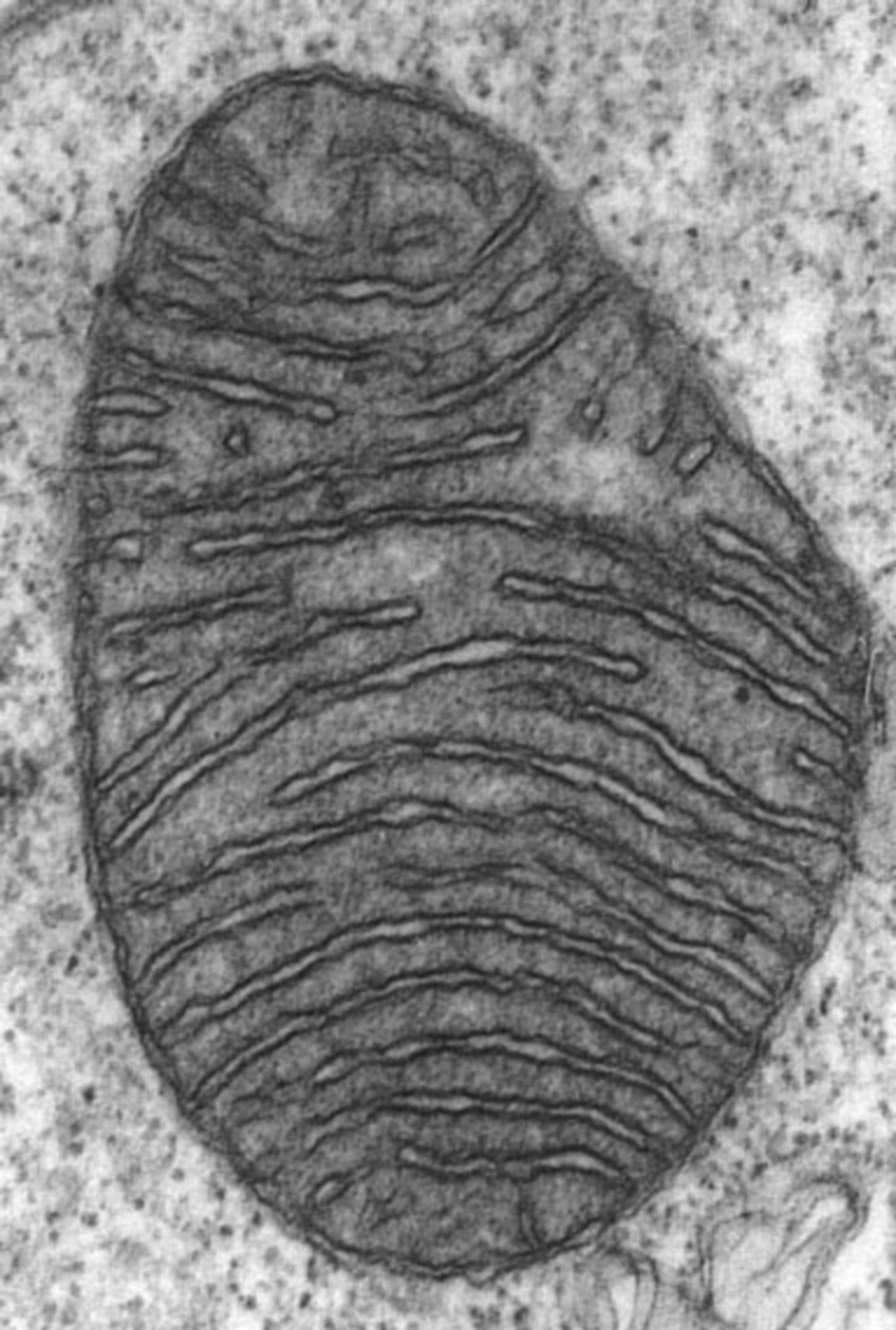 Ultrastruktur Mitochondrium