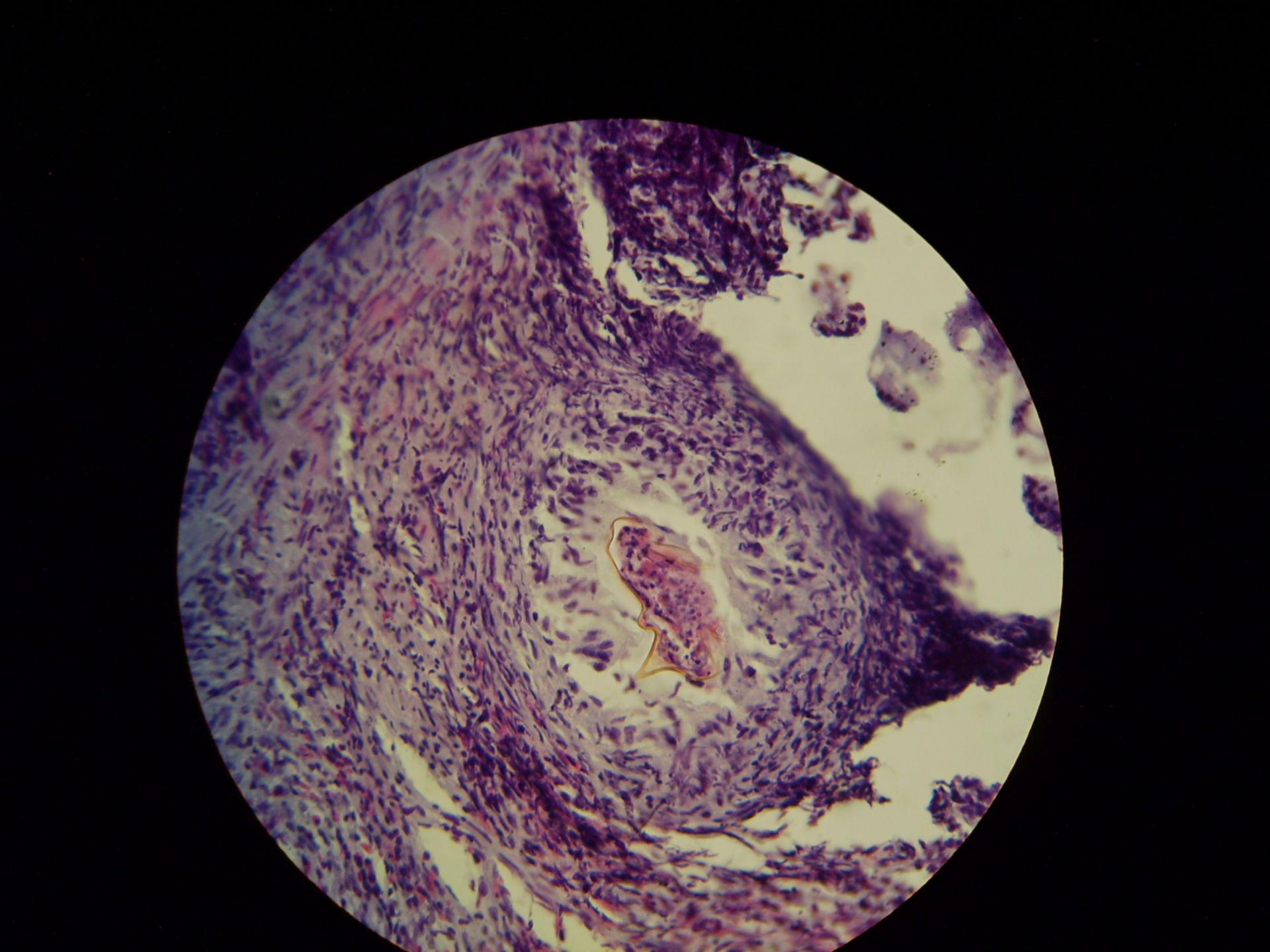Schistosomiasis nel retto