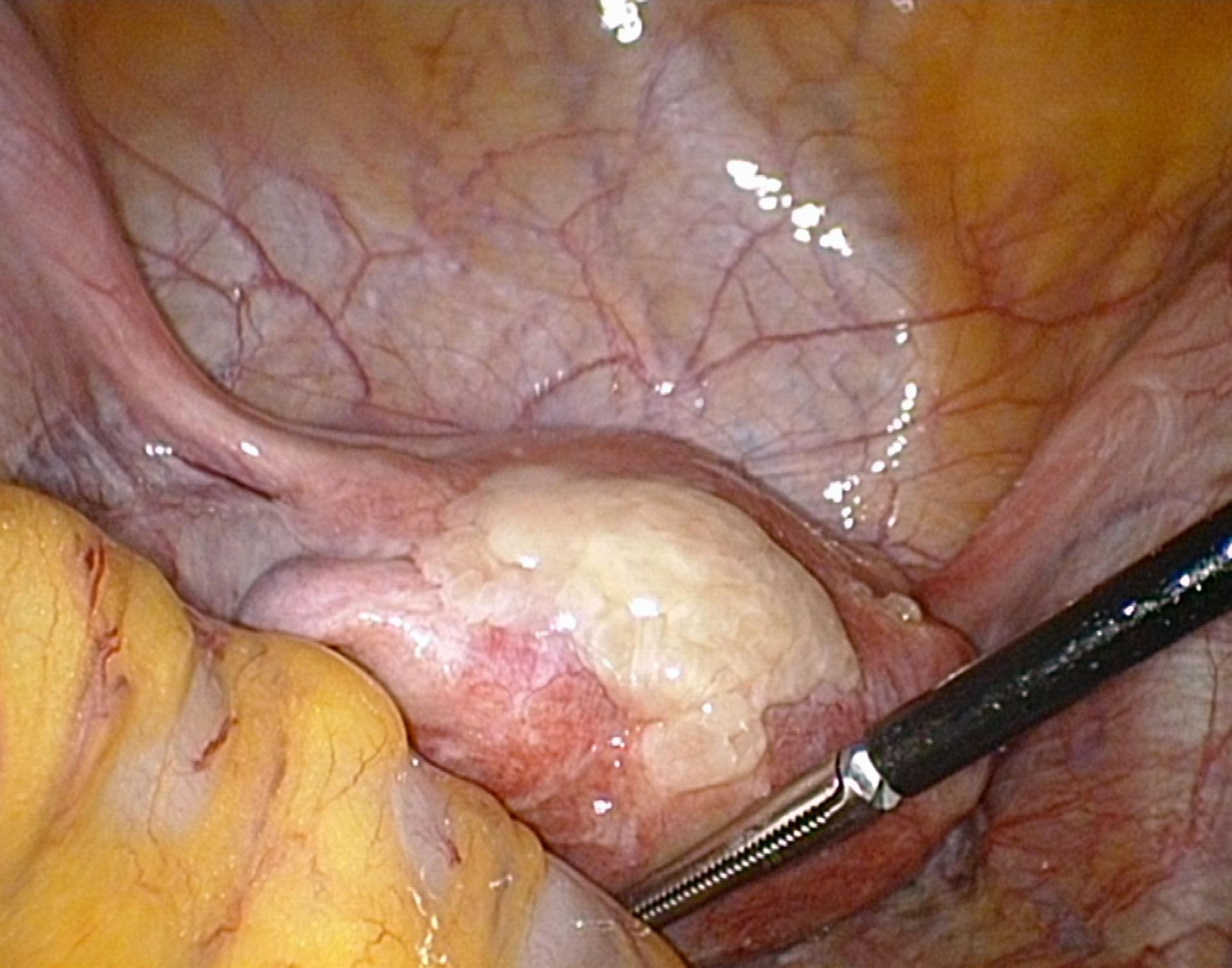 Ulcera duodenal perforada