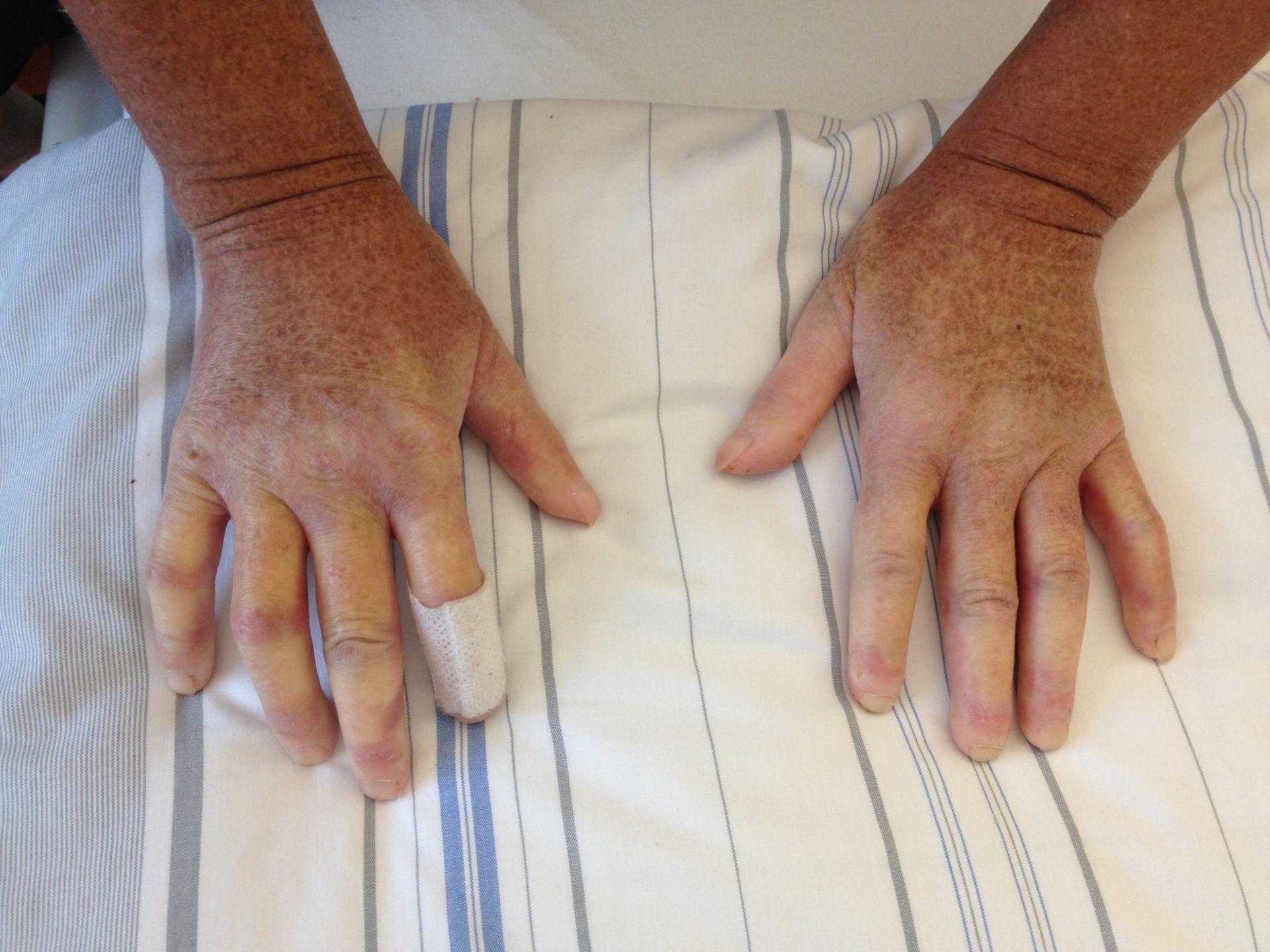 Sklerodaktylie und Raynaud-Symptomatik bei CREST-Syndrom (1/2)