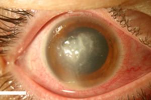 Pilzinfektion_Auge