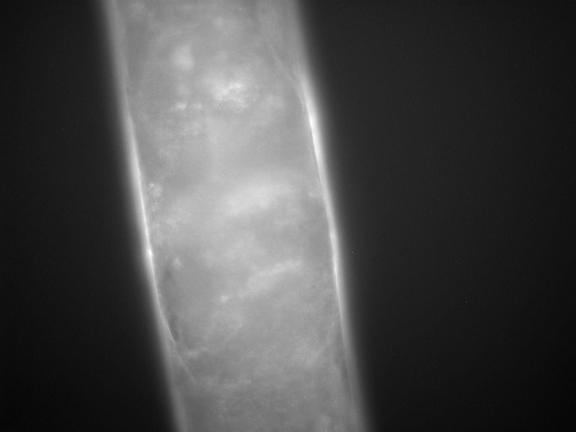 Caenorhabditis elegans (Actin filament) - CIL:1266