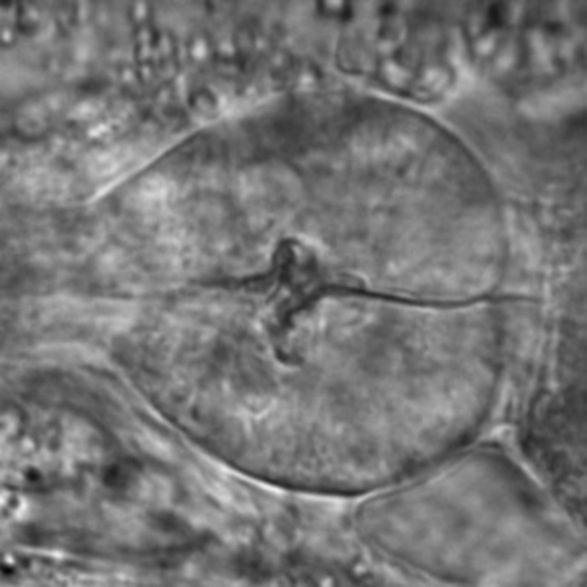 Caenorhabditis elegans - CIL:1699
