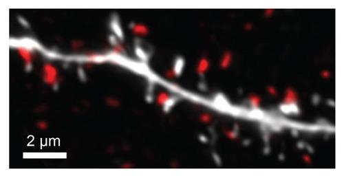 Dendrit einer Hauptnervenzelle in der Amygdala (weiß). Hemmende Synapsen sind rot dargestellt. MPI f. Hirnforschung/ J. Lezkus