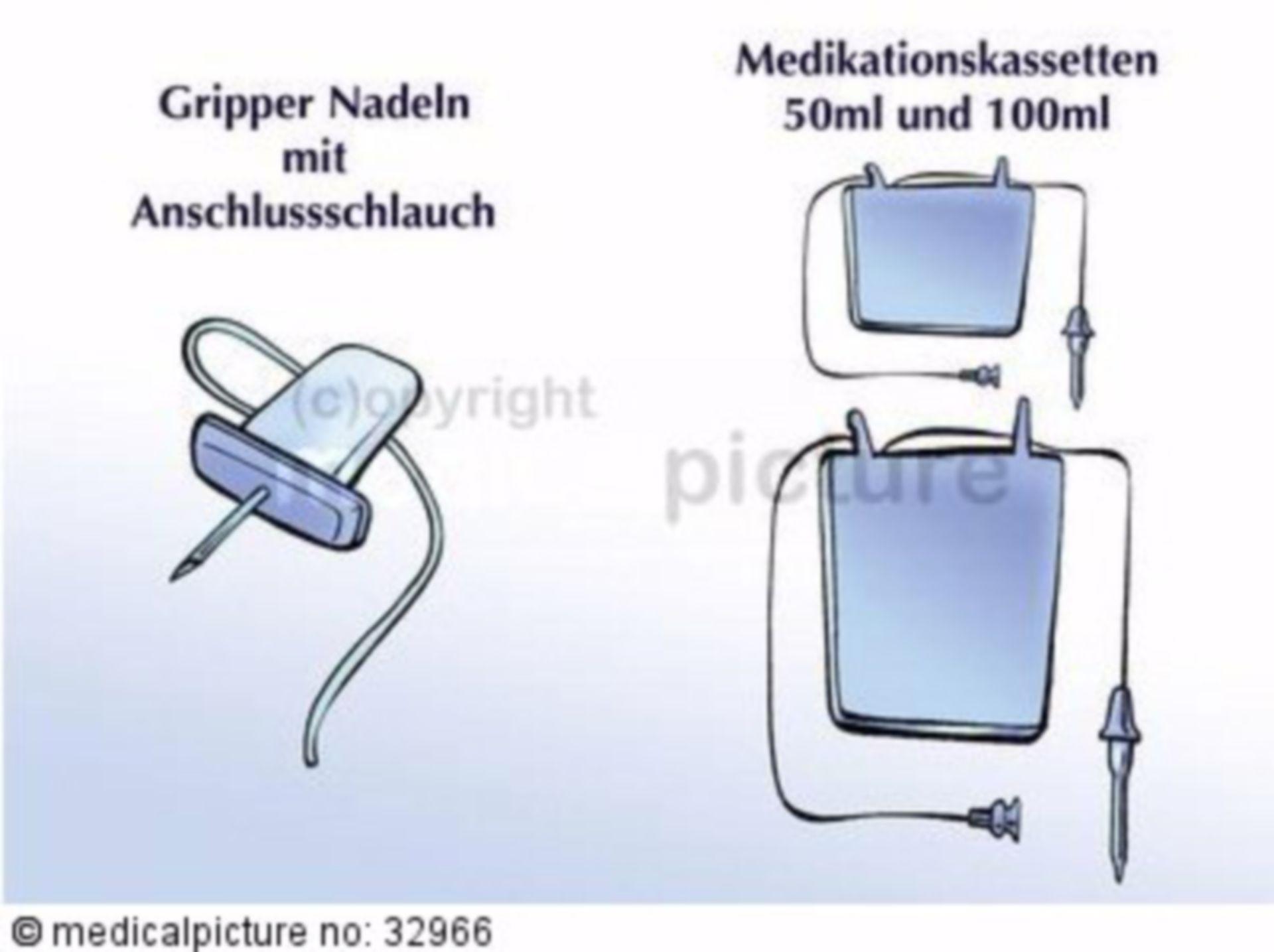 Tragbare Schmerzpumpe für chronische Schmerzpatienten