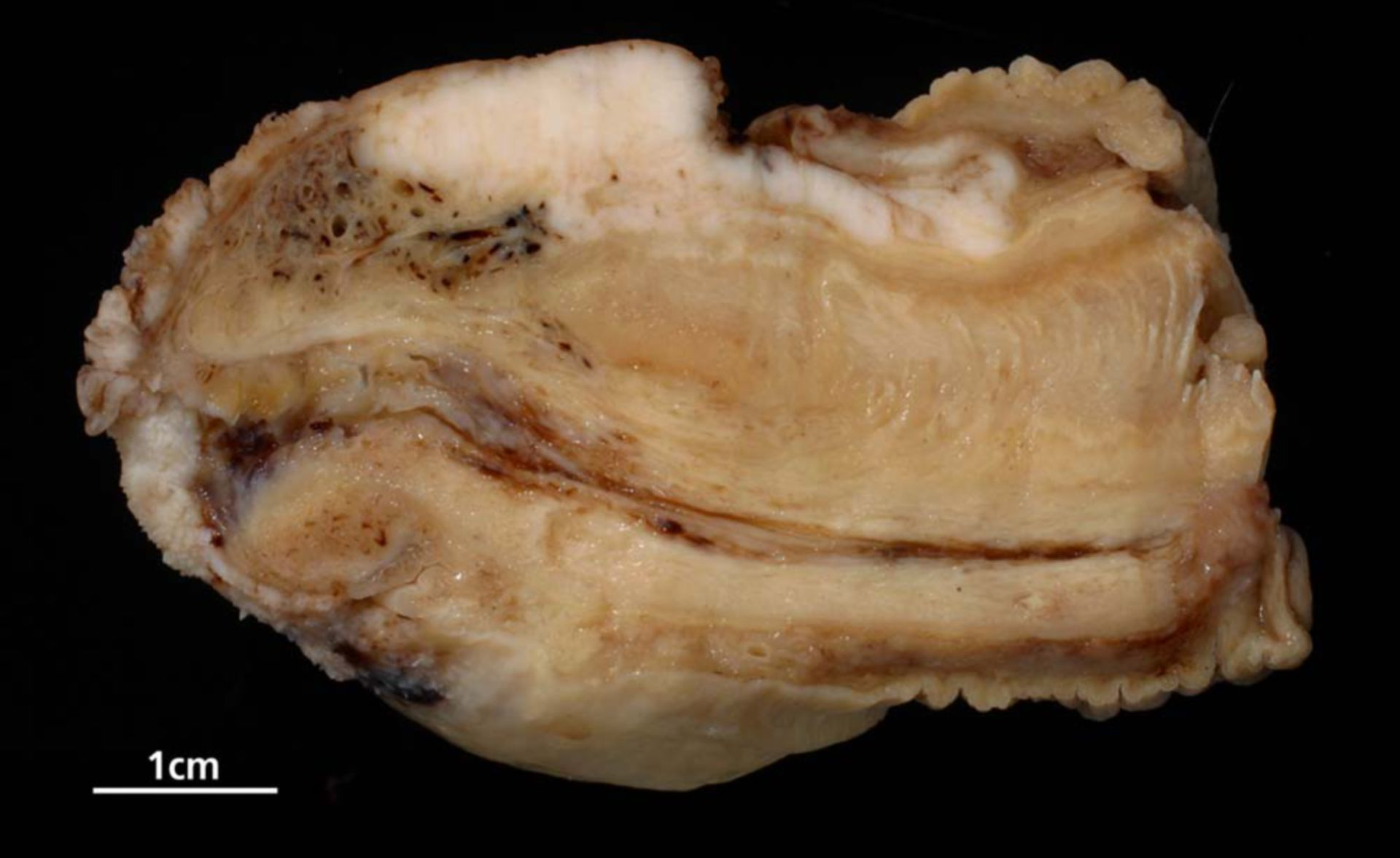 Squamous-cell carcinoma of the penis
