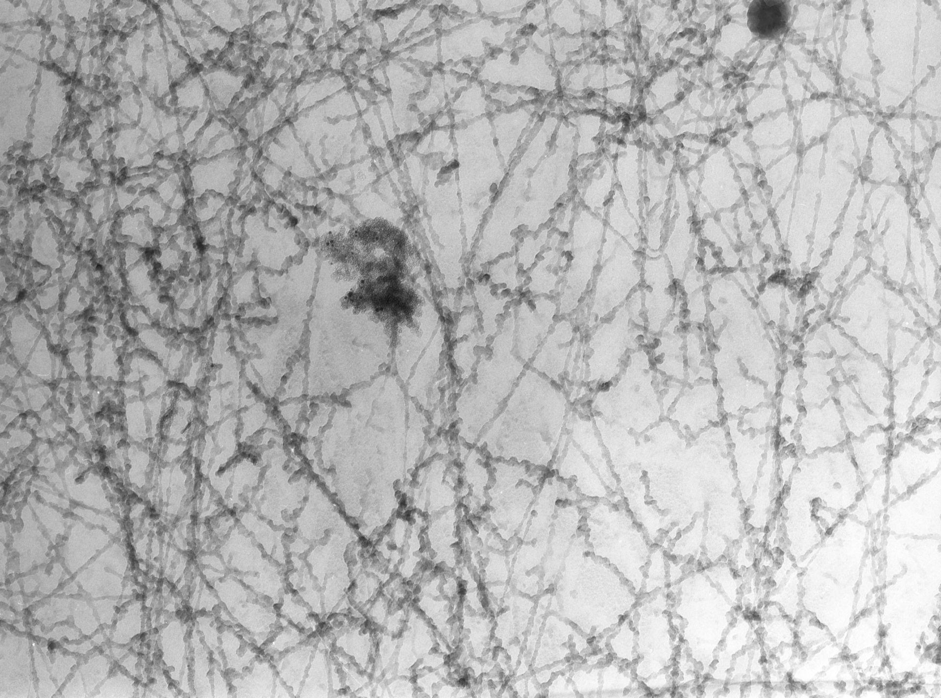 Notopthalmus viridescence (Nuclear chromatin) - CIL:10083