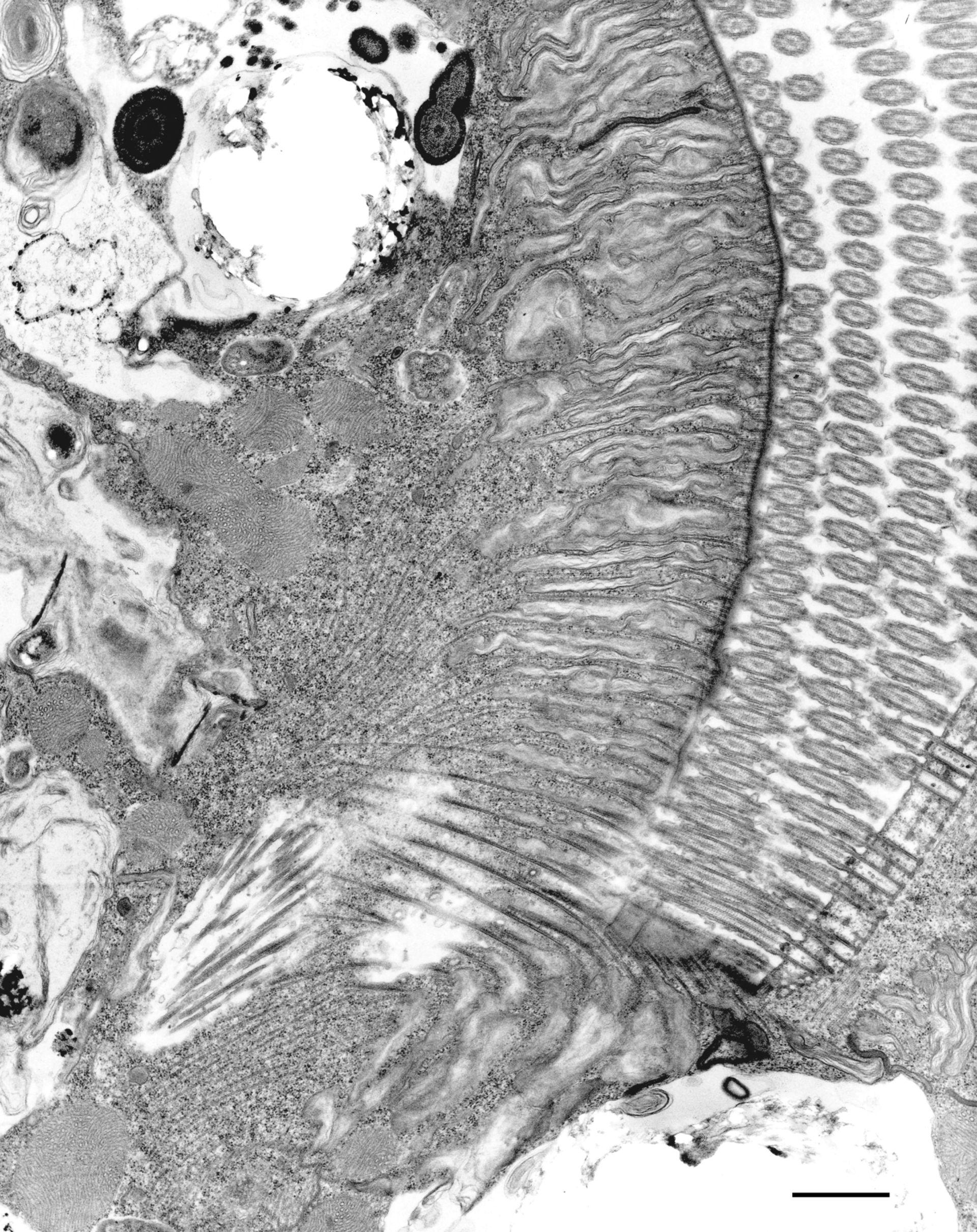 Euplotes sp. (Microfibrile) - CIL:12339