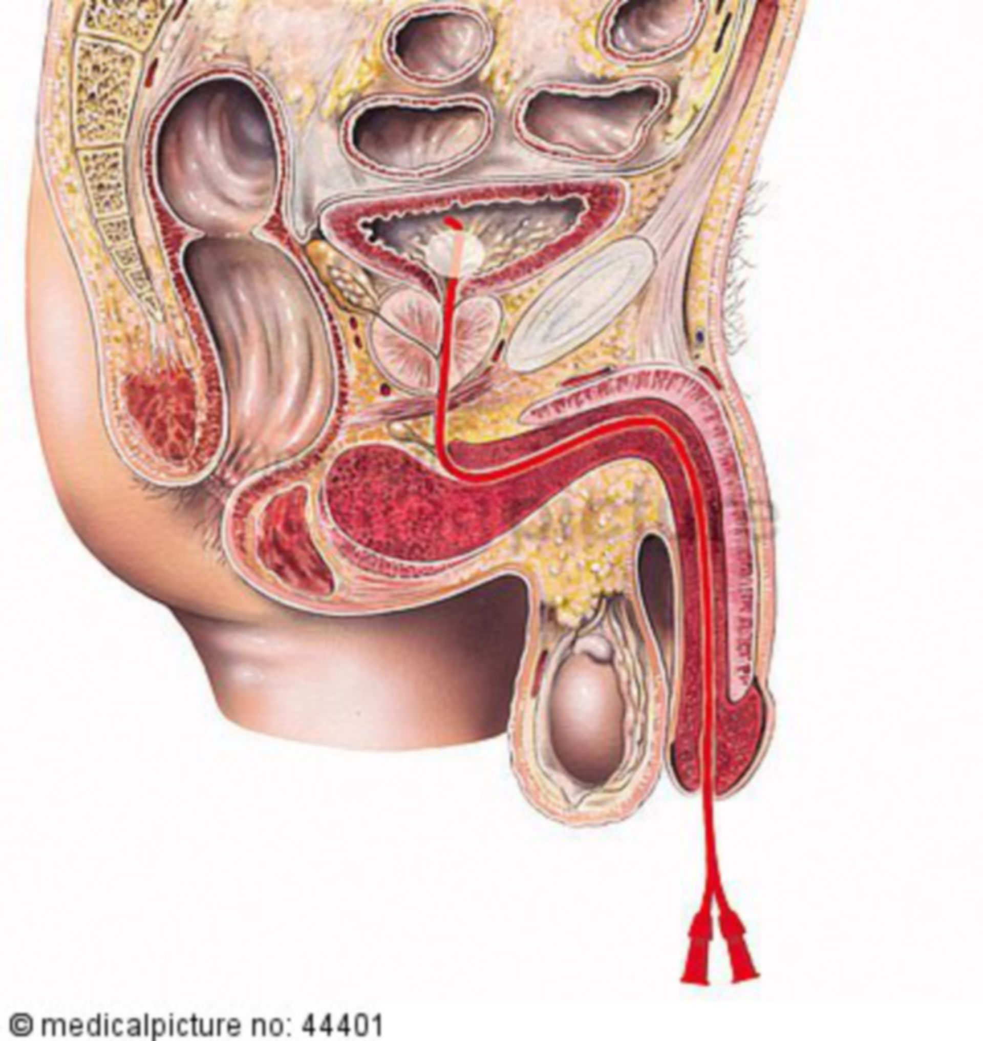 Catéter urinario en un hombre