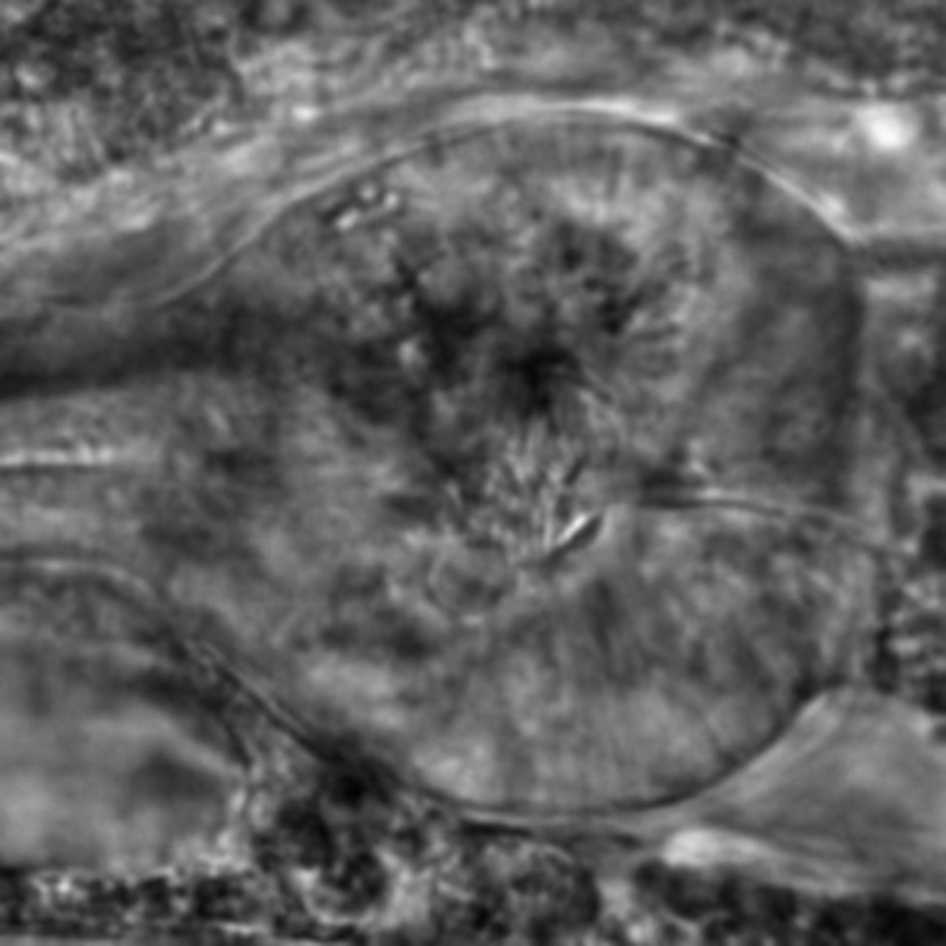 Caenorhabditis elegans - CIL:2310
