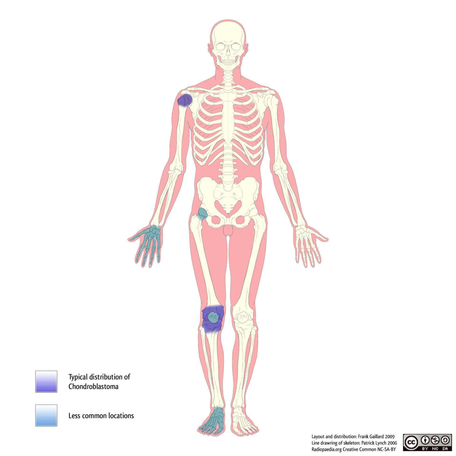 Verteilungsmuster bei Chondroblastomen.
