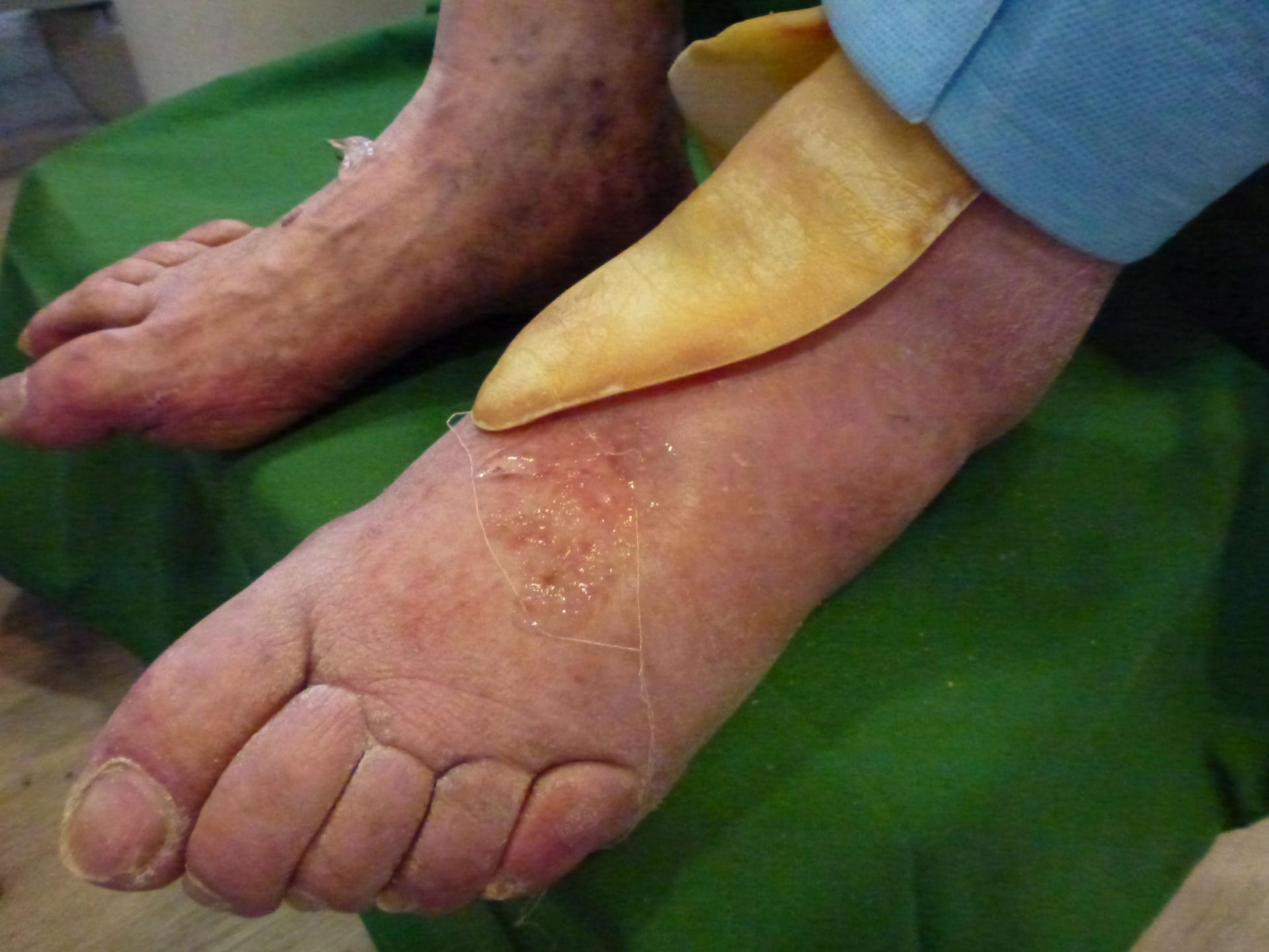 Úlcera de la pierna - Cerrada dentro de 72 horas (4)