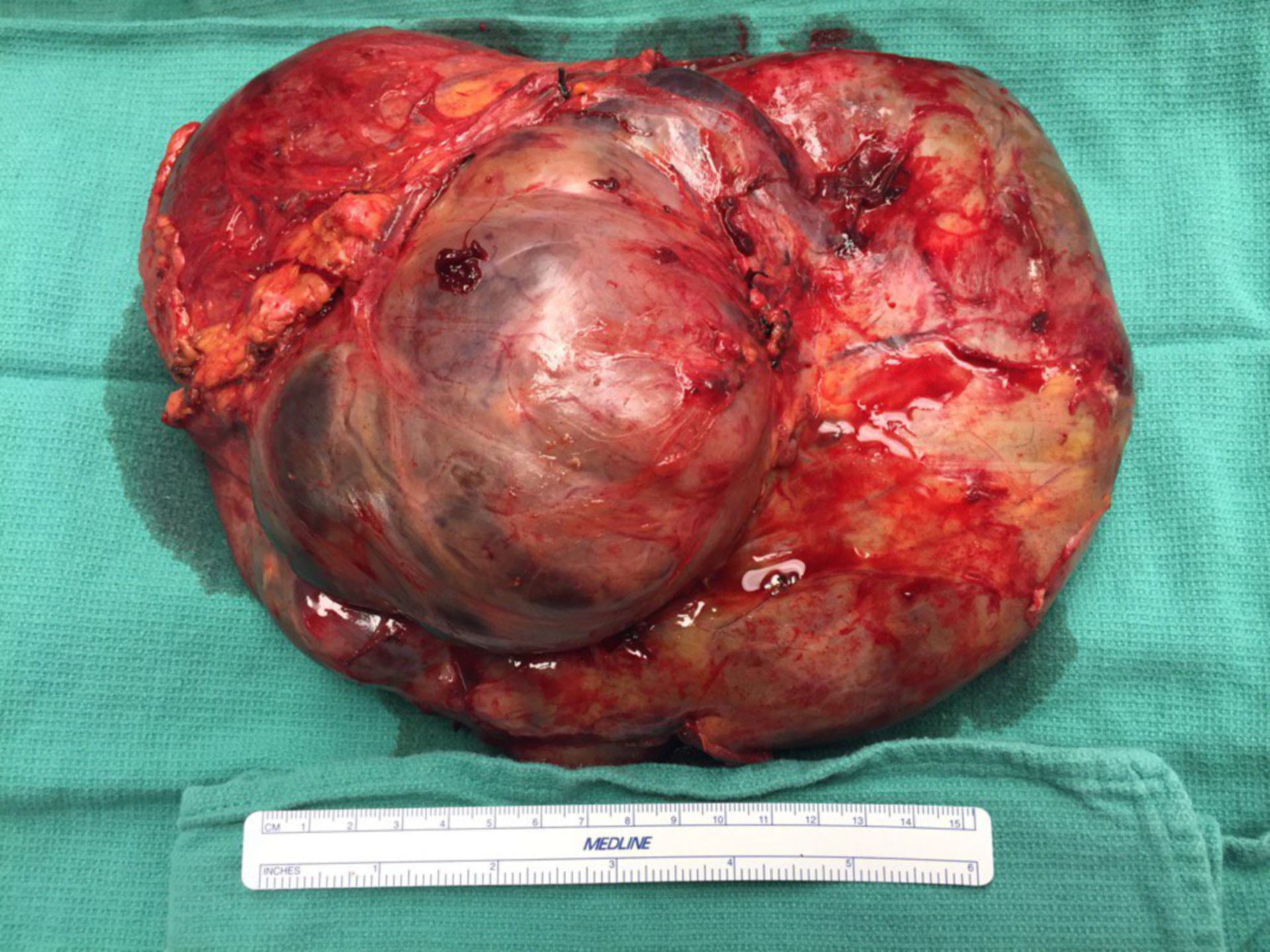 Tumore stromale gastrointenstinale (GIST)
