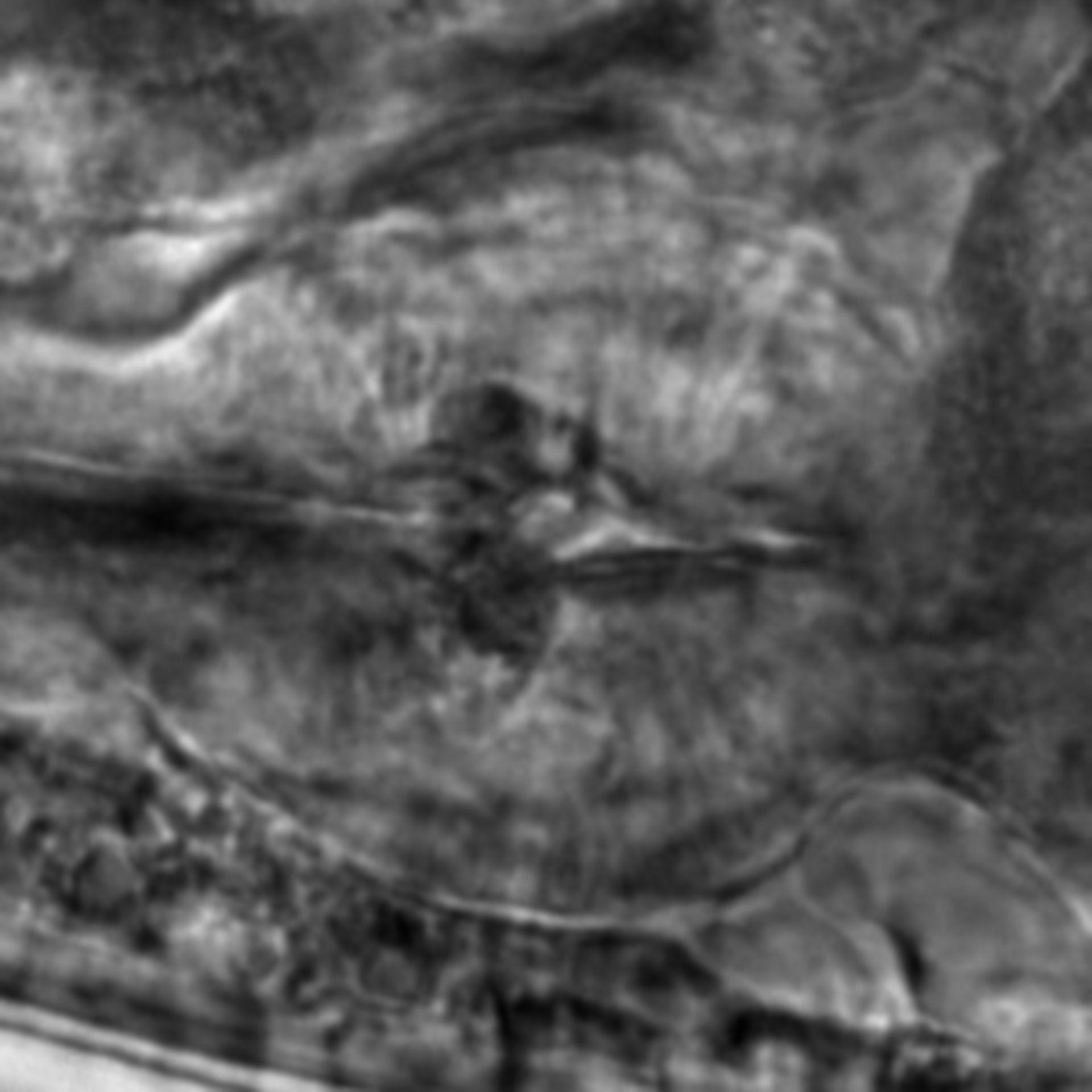 Caenorhabditis elegans - CIL:1914