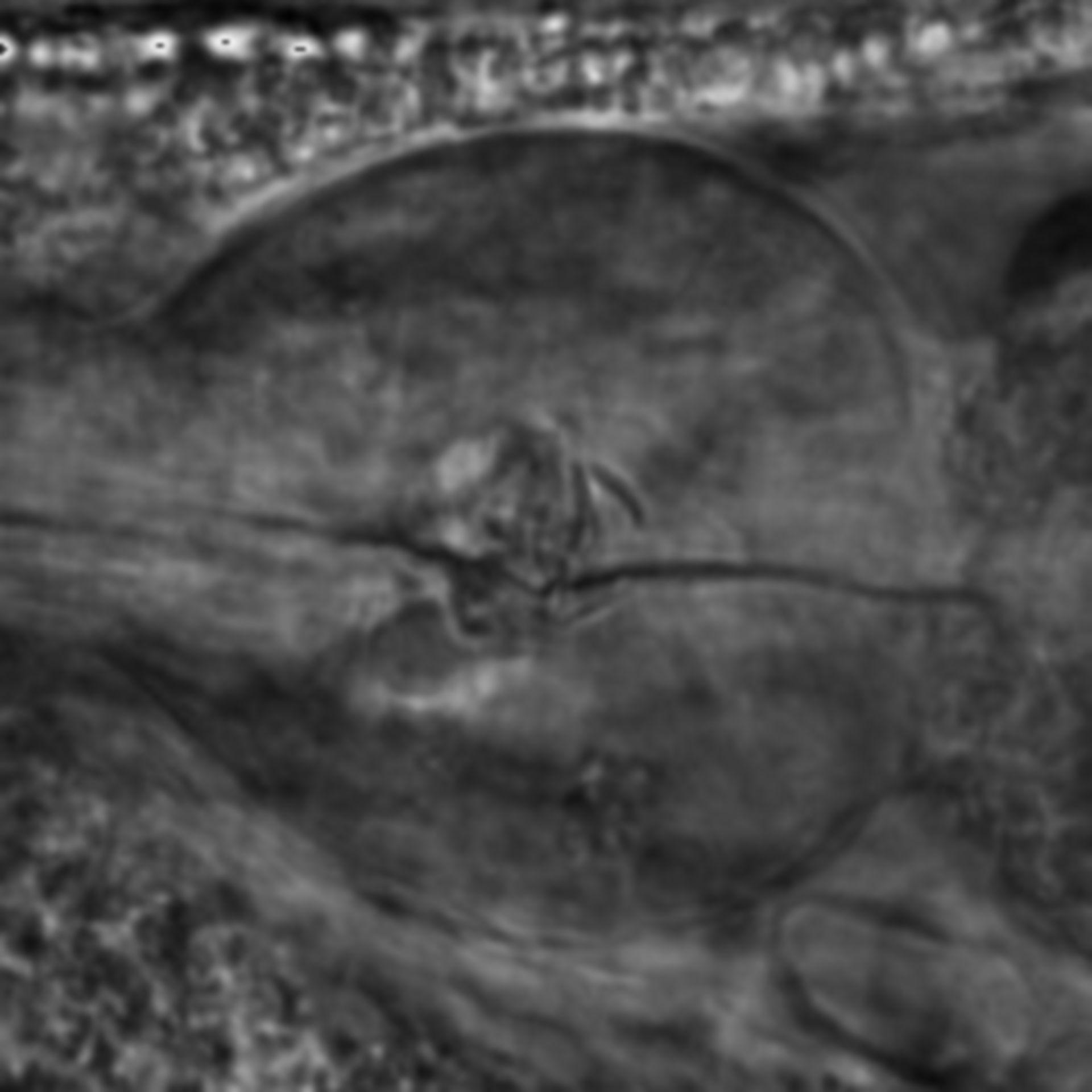 Caenorhabditis elegans - CIL:2260
