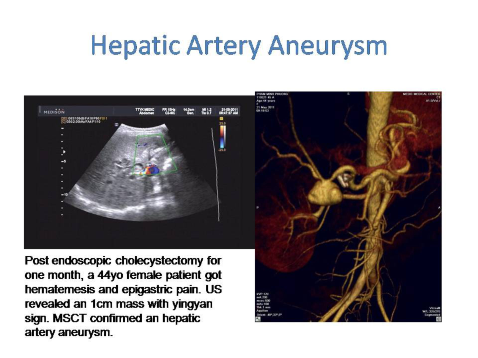 Aneurysma in der Arteria hepatica propria (1)