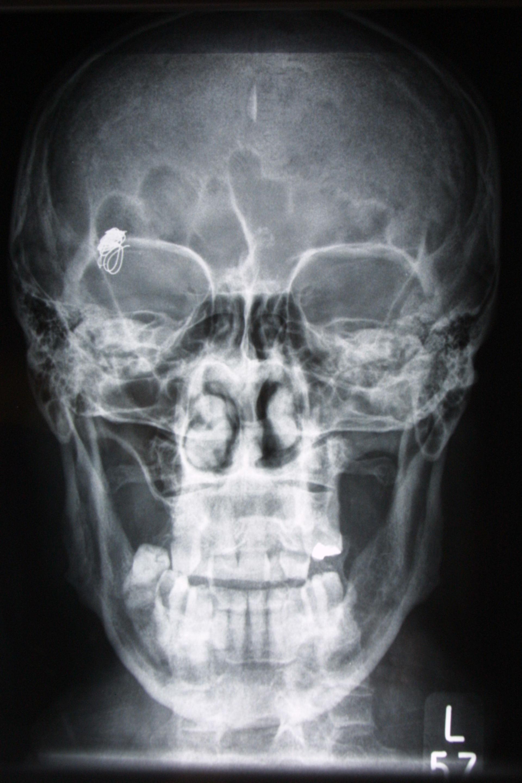 Aneurysmacoil nach 5 Jahren - Röntgen p.a.